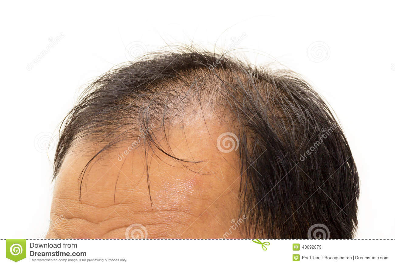 Male Head With Hair Loss Symptoms Front Side Stock Photo
