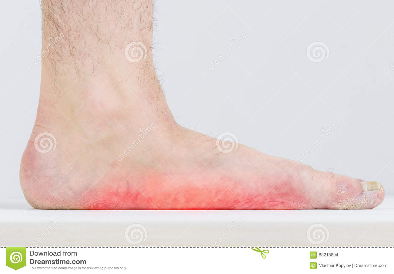 Male Leg With Strongly Pronounced Flat Feet. Stock Photo - Image ...