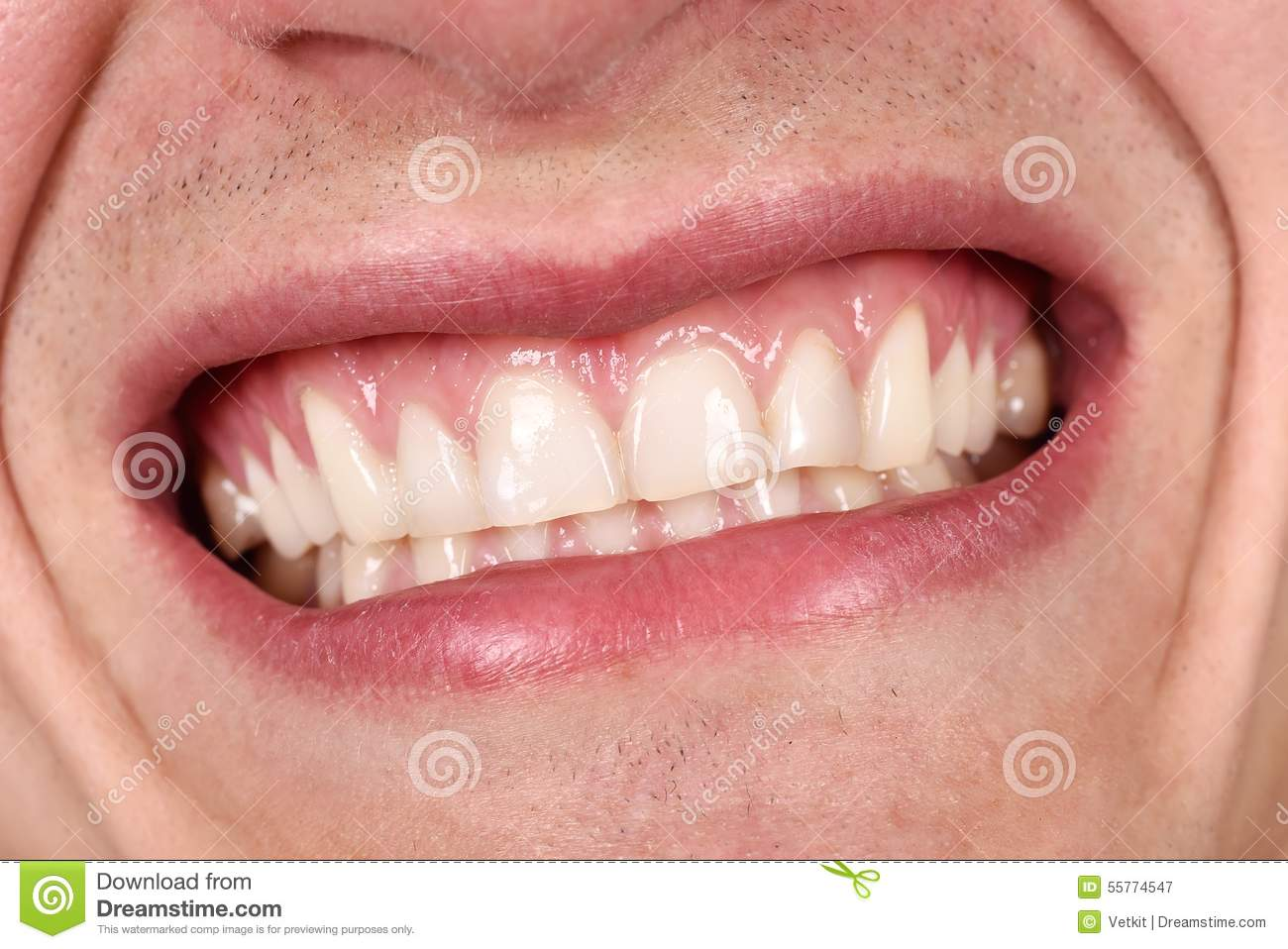 male-mouth-laughing-showing-his-teeth-close-up-55774547.jpg