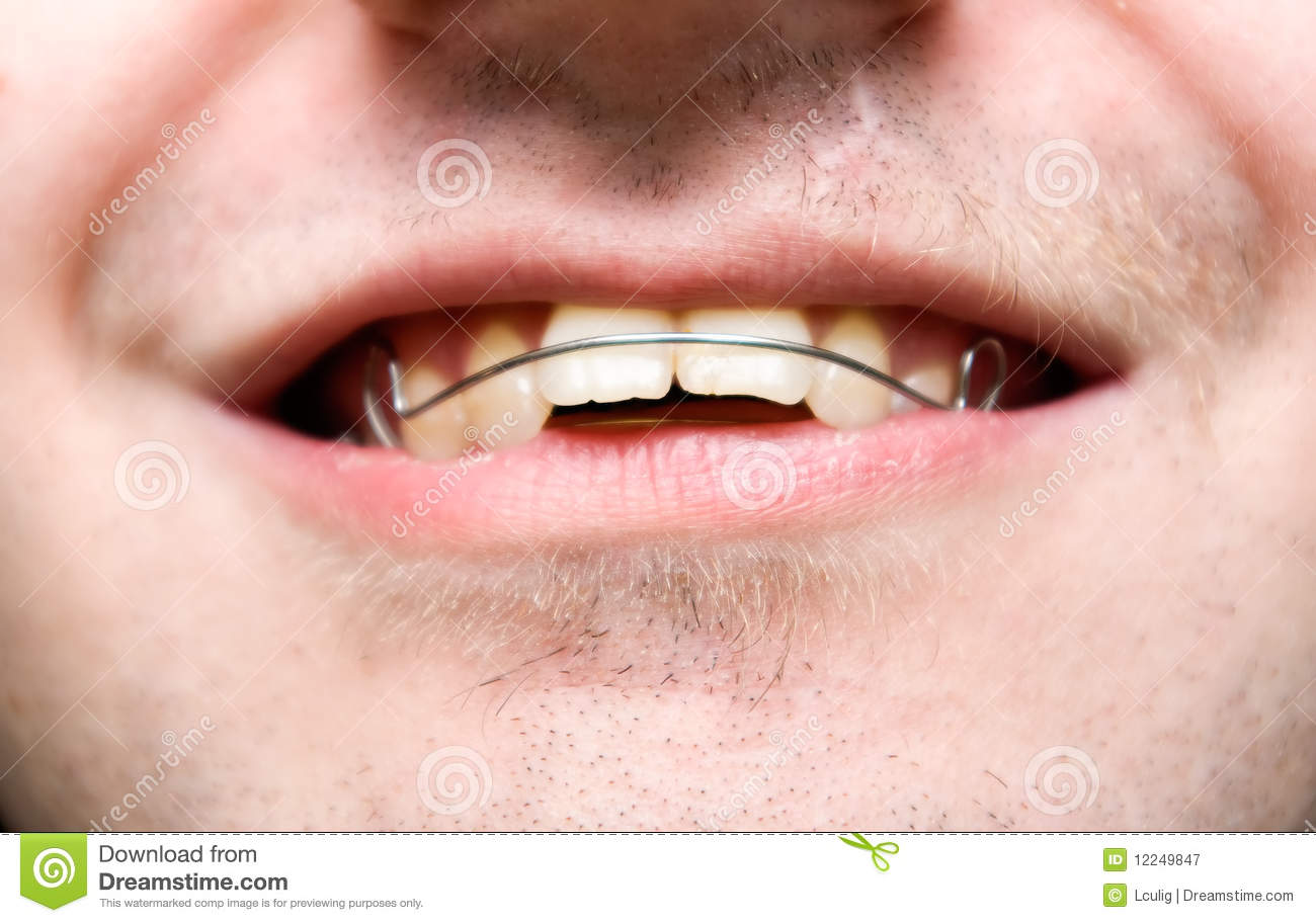 Male With Overbite Wearing Braces And Smiling Stock Image ...