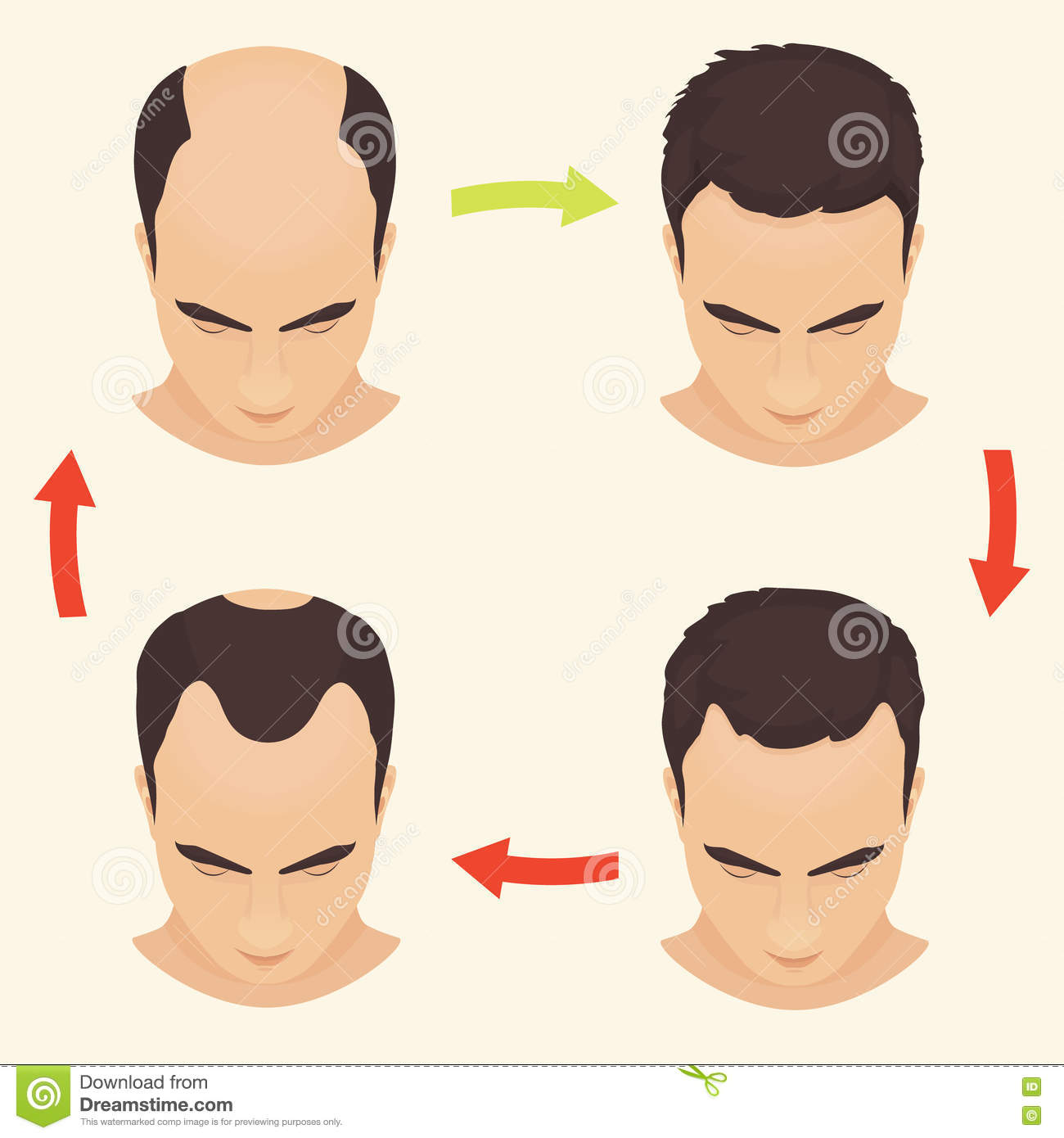 What Is Male Pattern Baldness Best Decorating Ideas