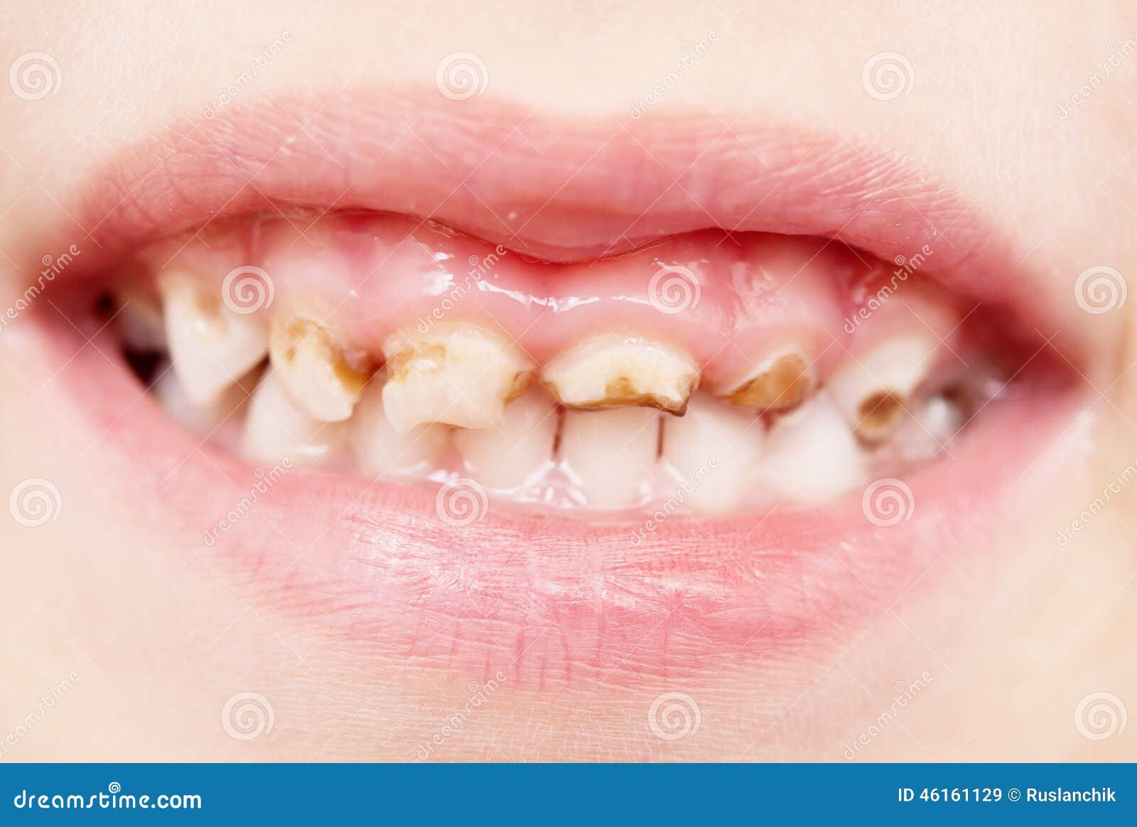 Malos dientes