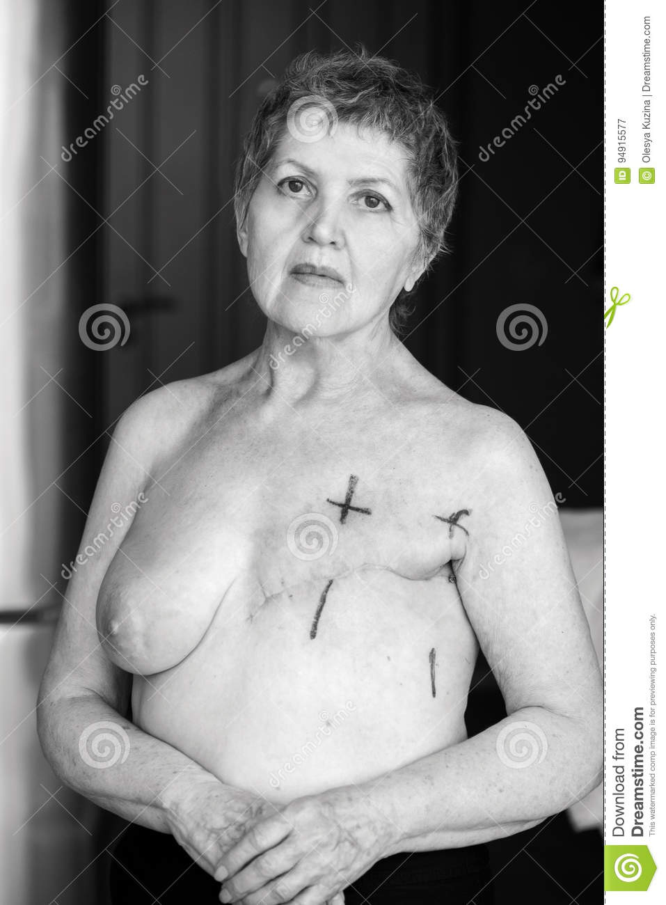 Nude breast cancer portrait