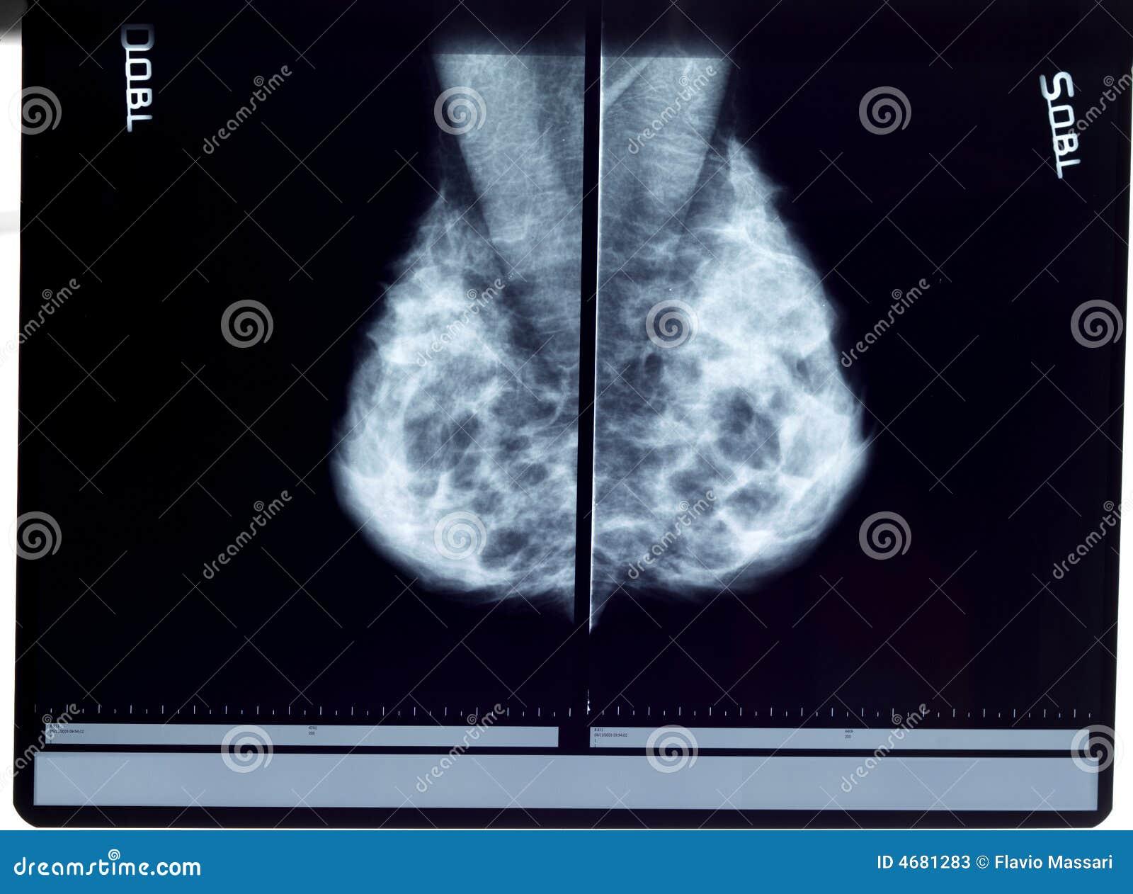 Mammogramstråle x