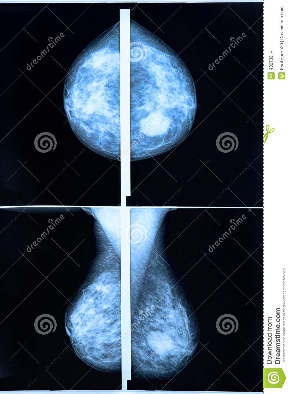 3D Mammography (Tomosynthesis)