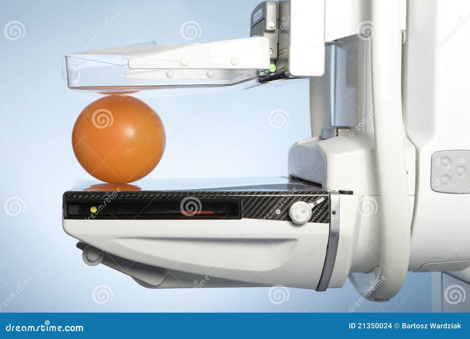 mammograph machine