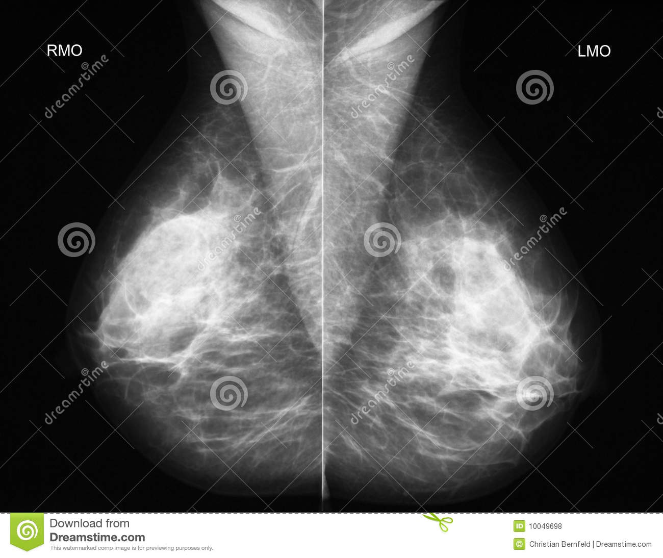 Mammography In Oblique Projection Royalty Free Stock