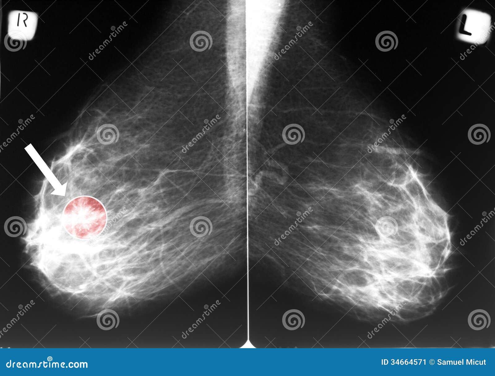 Mamograma con el cáncer de pecho
