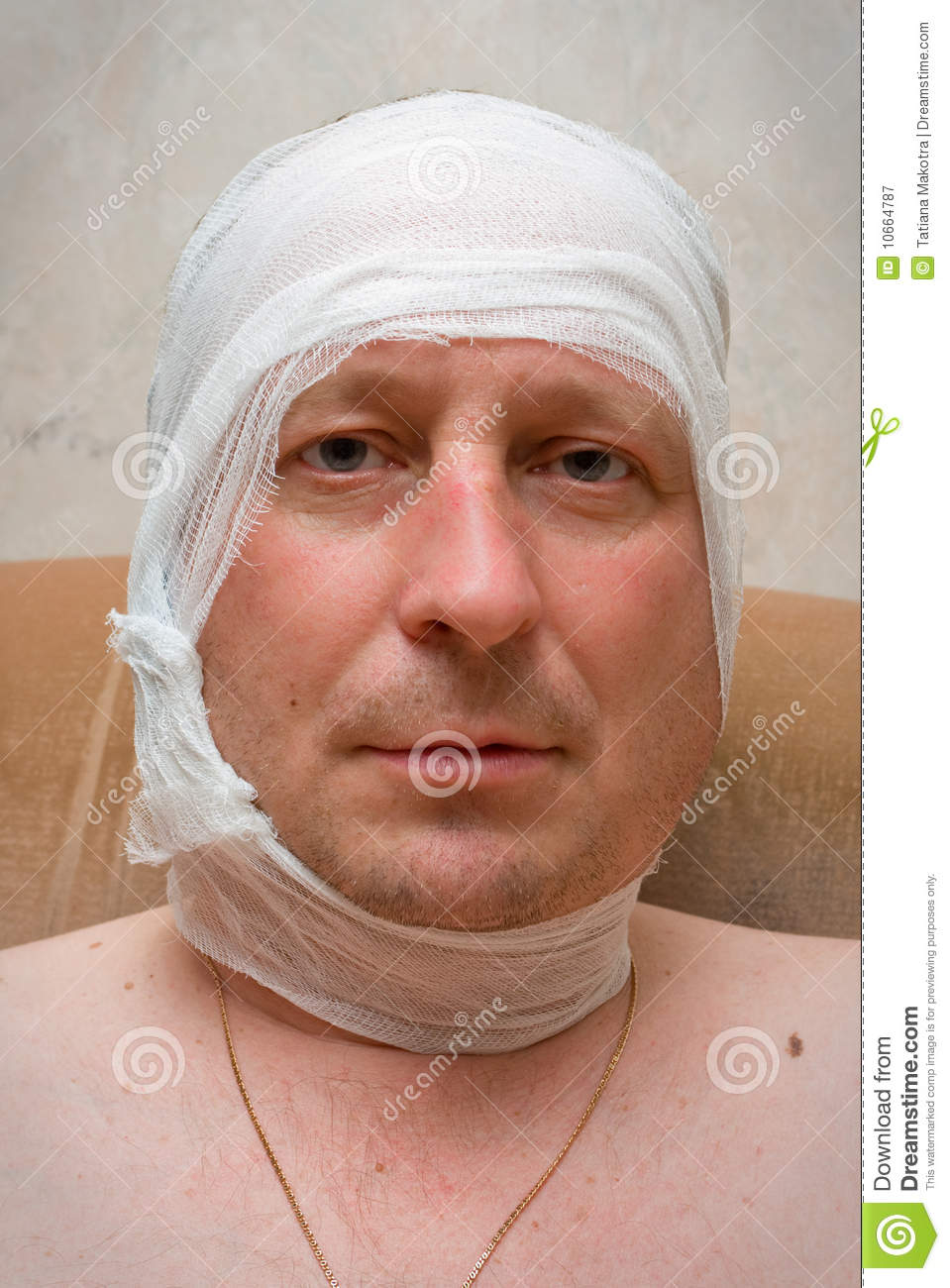 Man With Bandage On Head Royalty Free Stock Photography