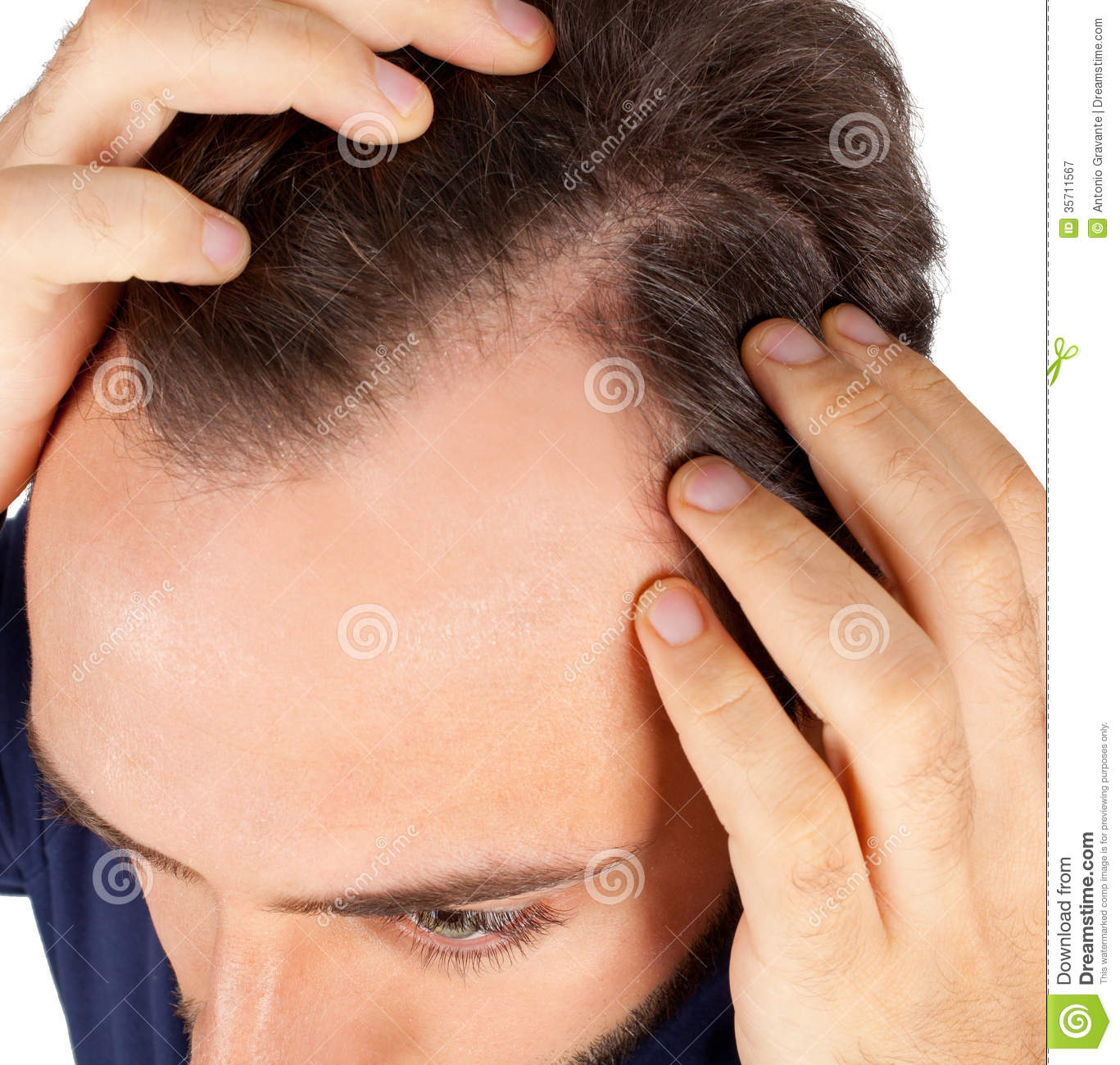 Man Controls Hair Loss Stock Image Image Of Front Male 35711567