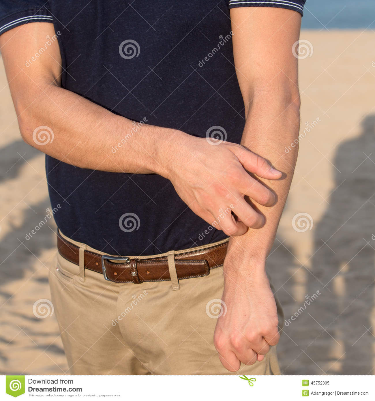 Man having a sun allergy