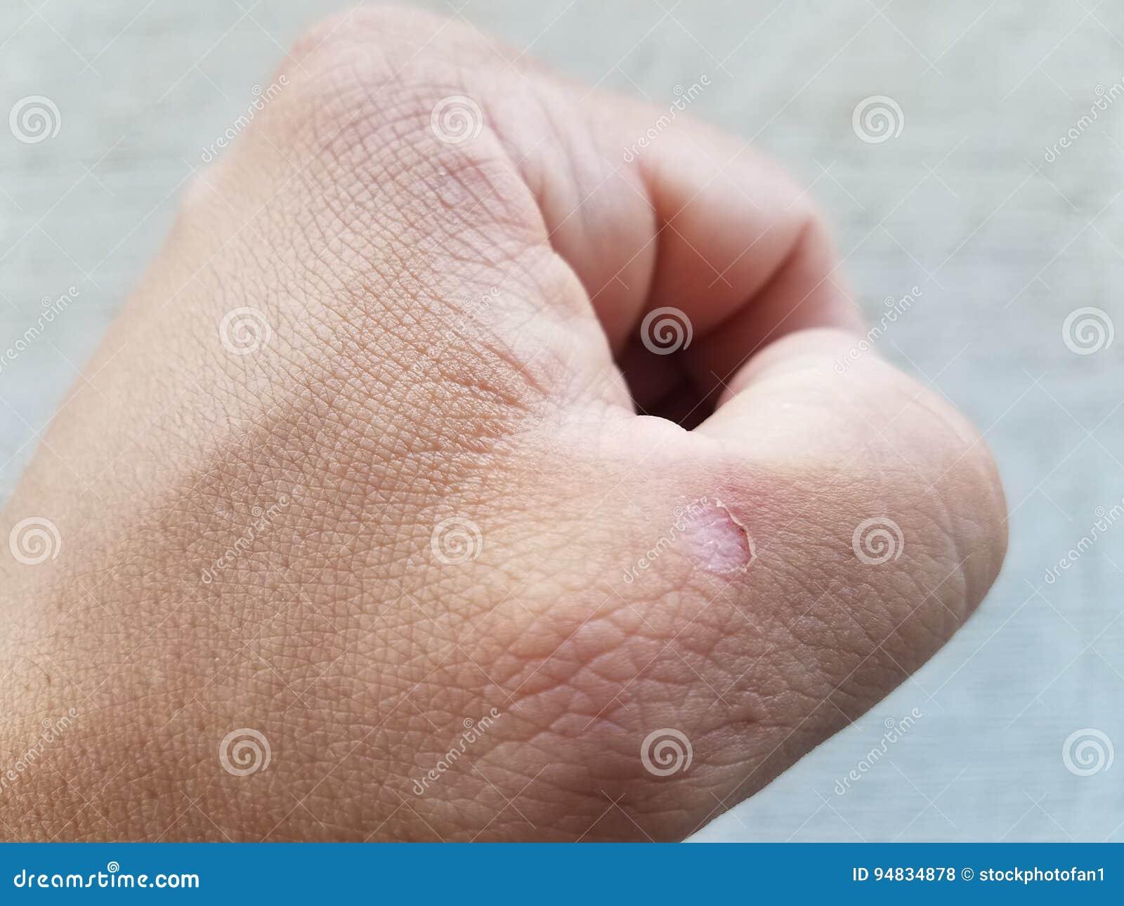 Man näven för ` s med blåsan nära tummen