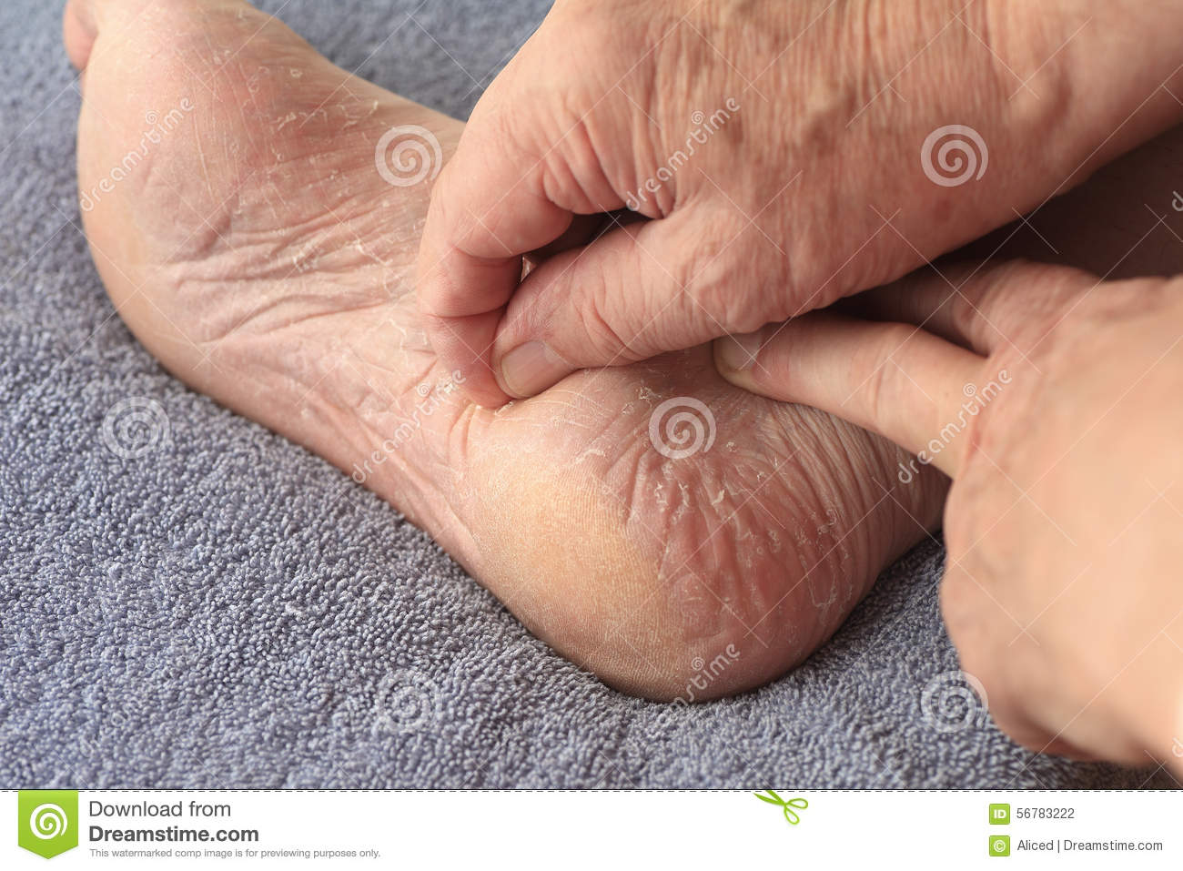 Apologise, Dry sore thumbs athletes foot symptoms something is