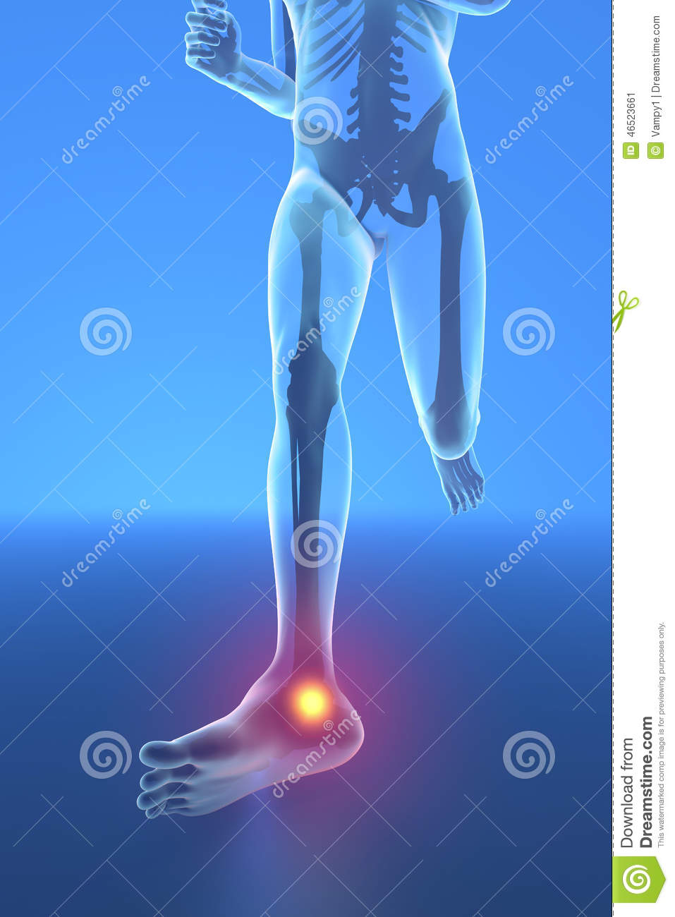 Man Running With Ankle Pain Stock Illustration - Illustration of ...