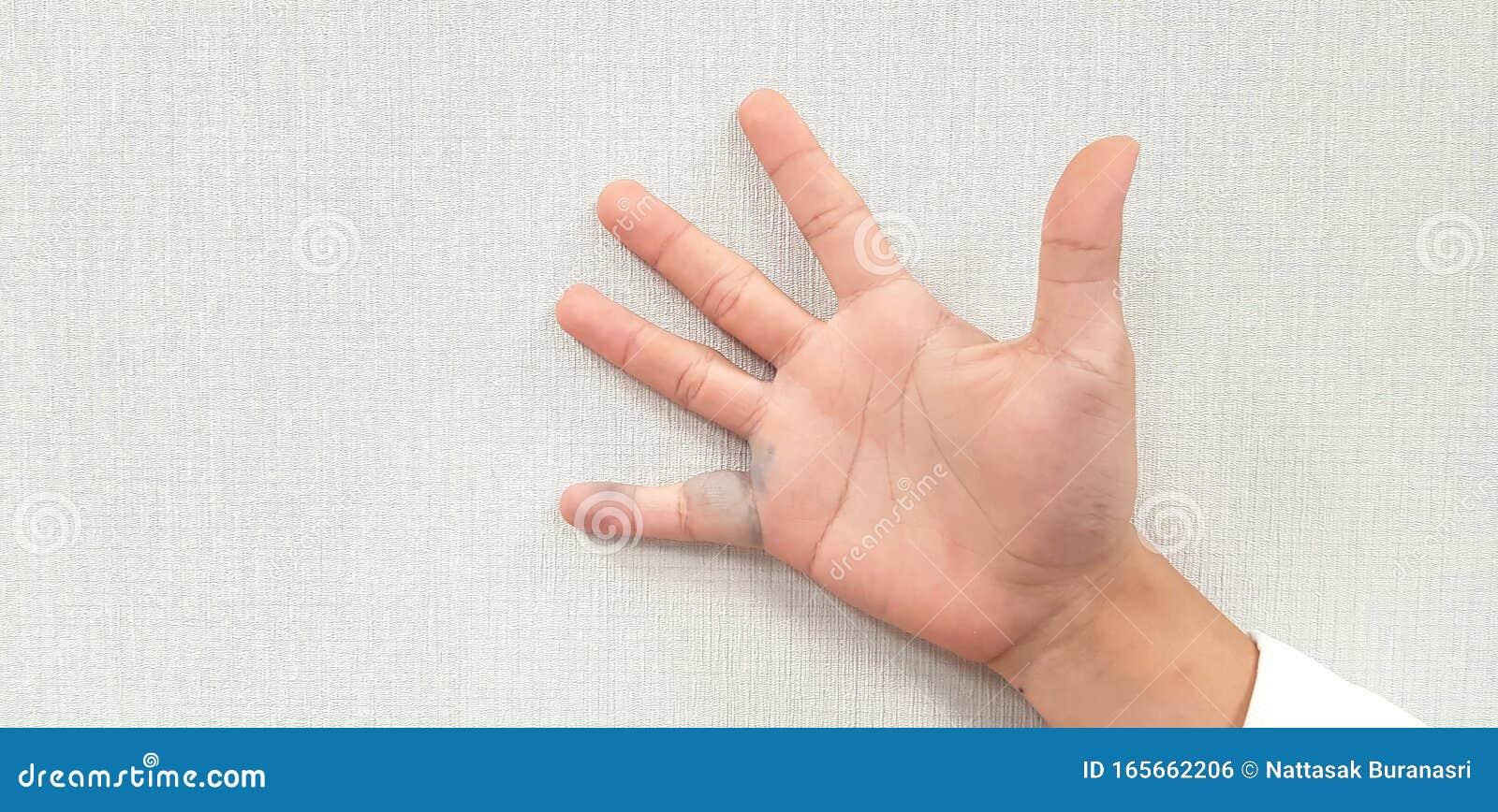 Tinctura pentru frectii impotriva varicelor | Health remedies, Health, Hand soap bottle