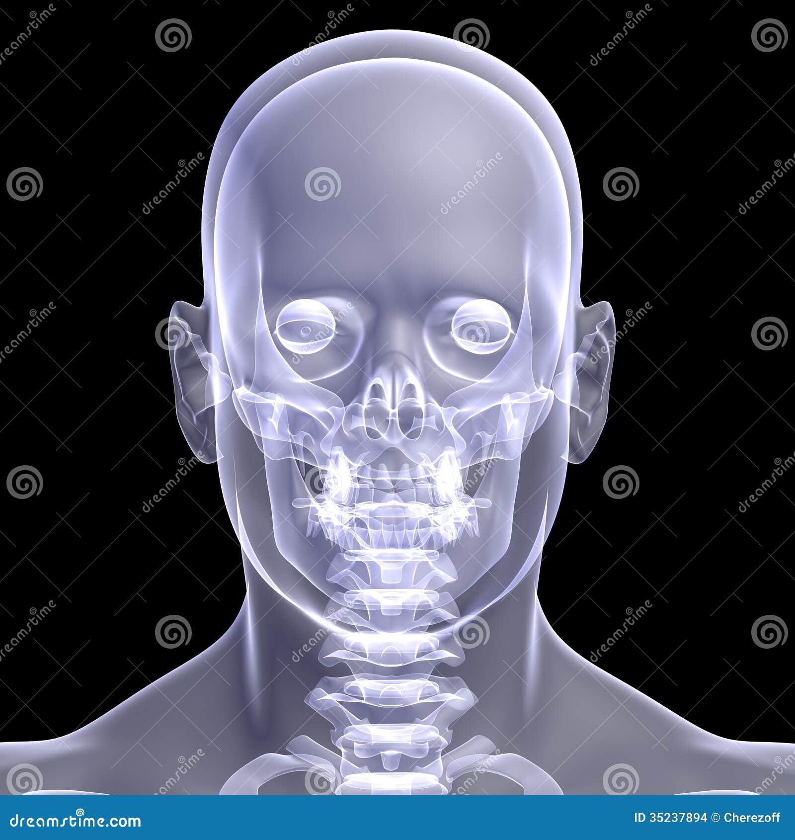 Снимок головы в раменском 18 фотография