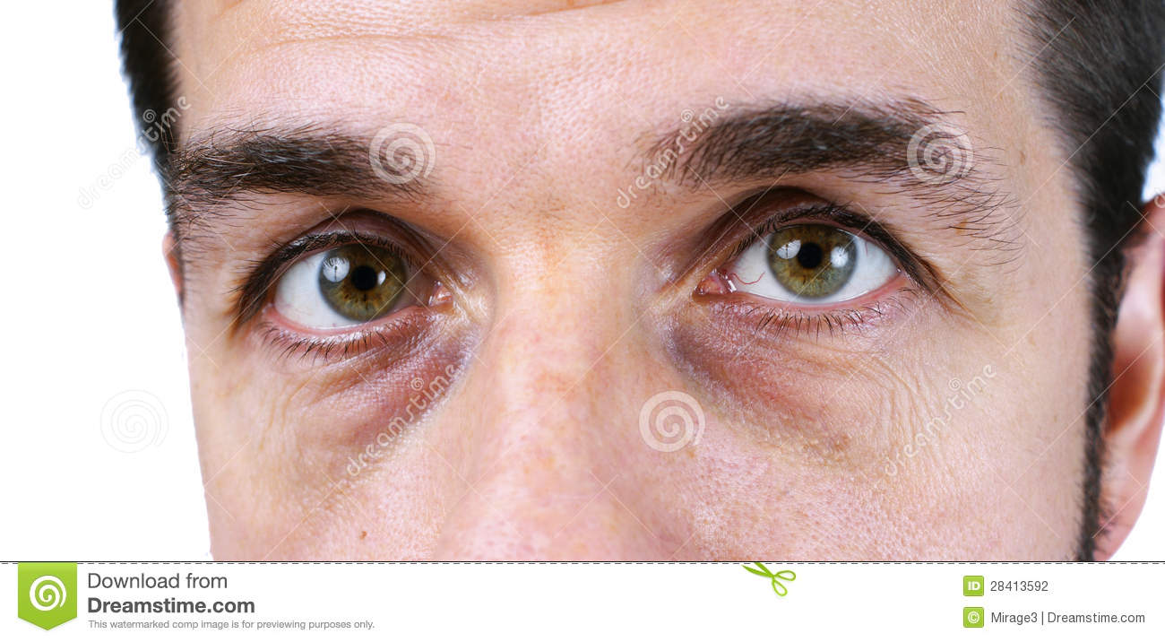 Computer Clipart Tired - Taking Care Of Eyes Clipart - Free Transparent PNG  Clipart Images Download
