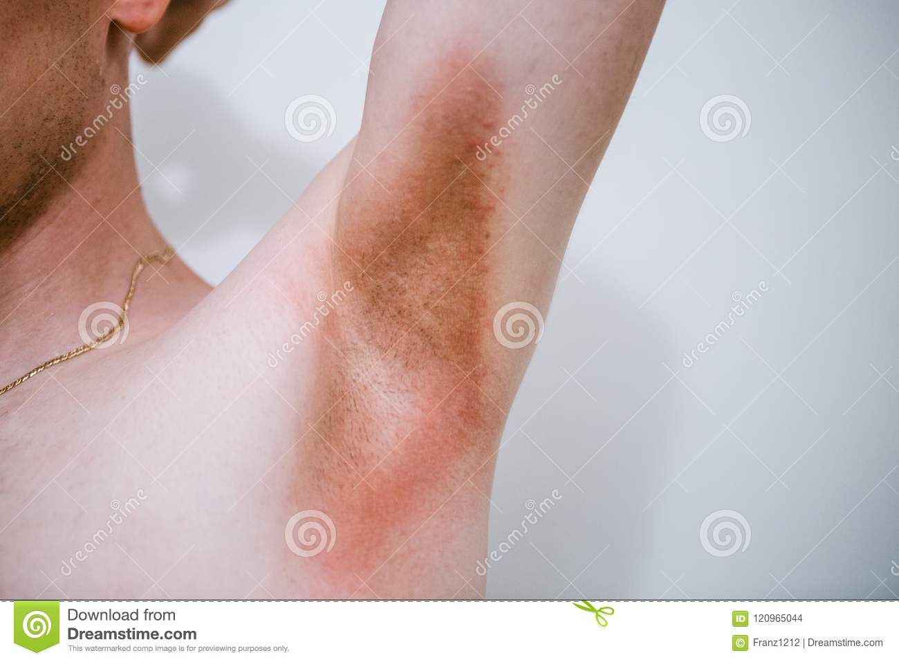 A Man With A Skin Disease In The Armpit Area. Prickly Heat. Stock ...