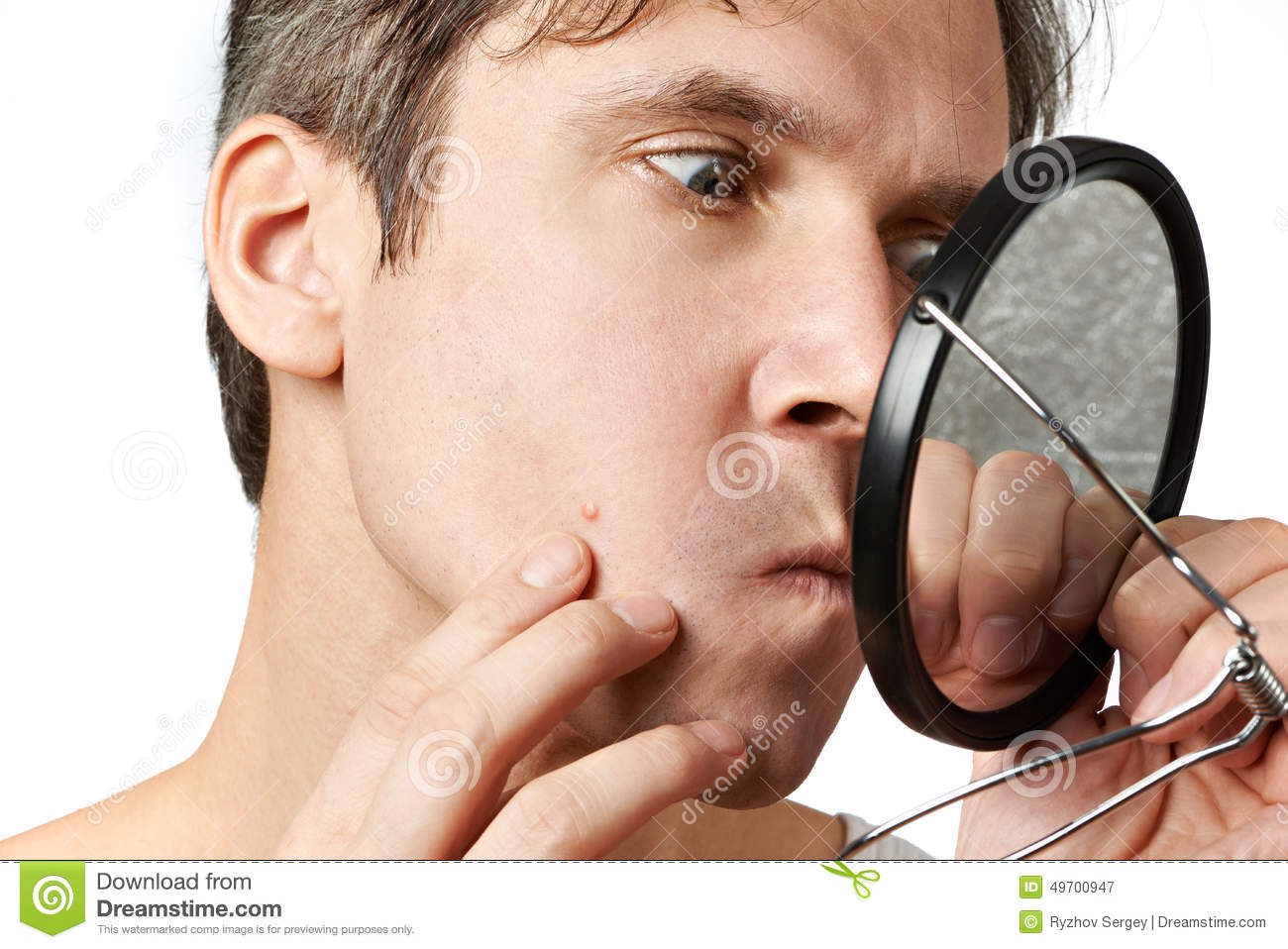 Man squeezing a pimple