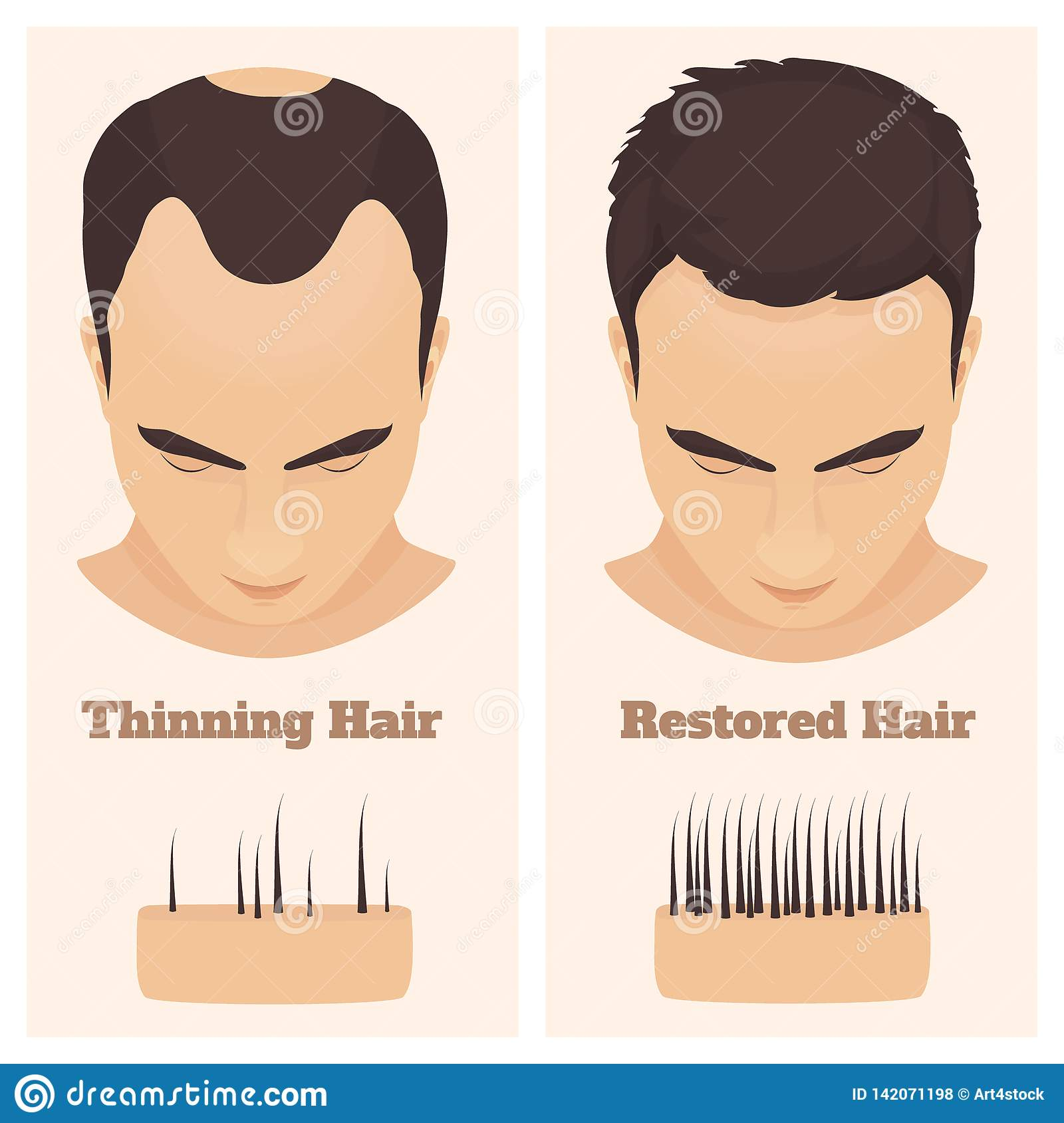 male pattern alopecia set  medical educational poster