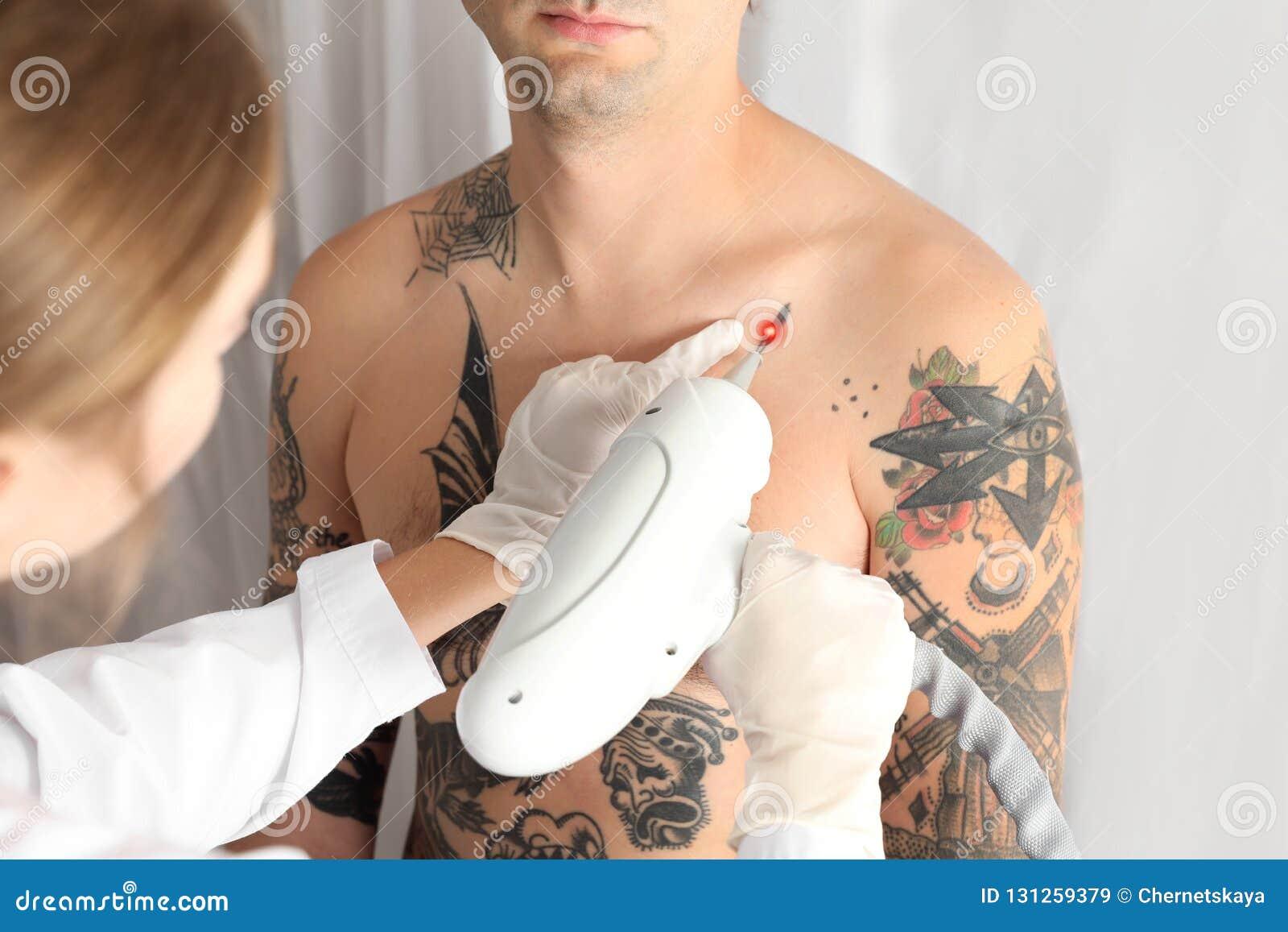 Man Undergoing Laser Tattoo Removal Procedure Stock Image