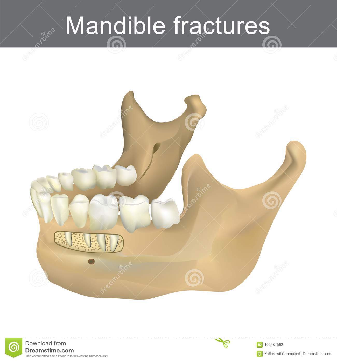 Mandible Fractures Is The Largest, Strongest And Lowest Bone In ...