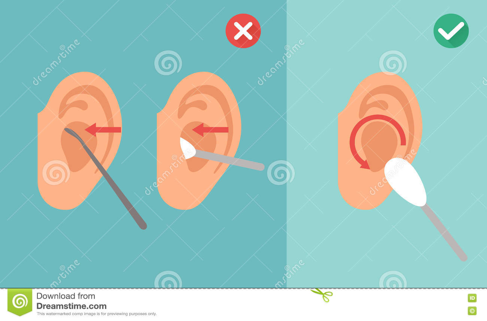 Maneira errada e direita para limpar a orelha, vetor