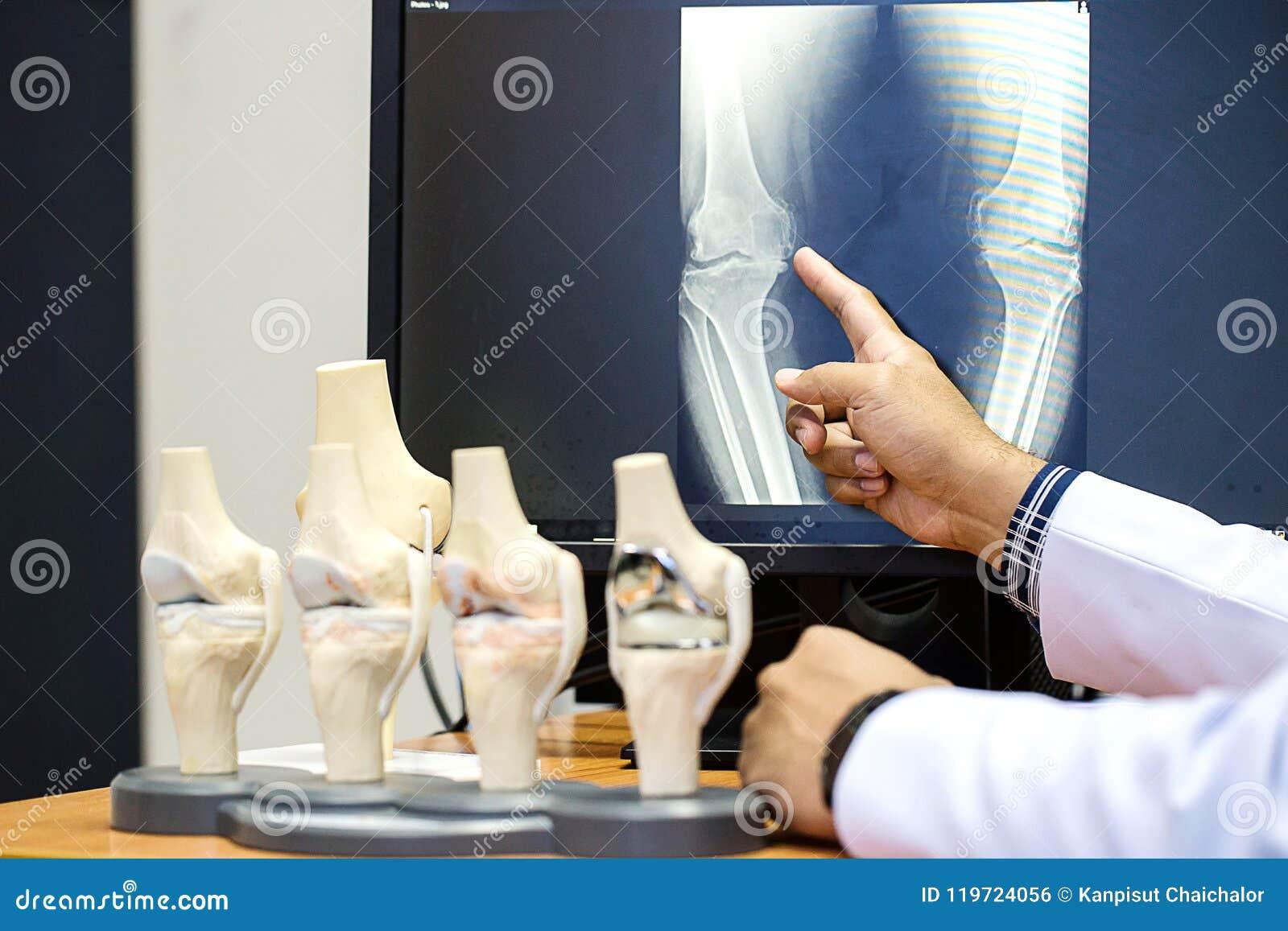 Manipulera att peka på knäproblempunkten på röntgenstrålefilmen knä för show för röntgenstrålefilm skelett- på filmen