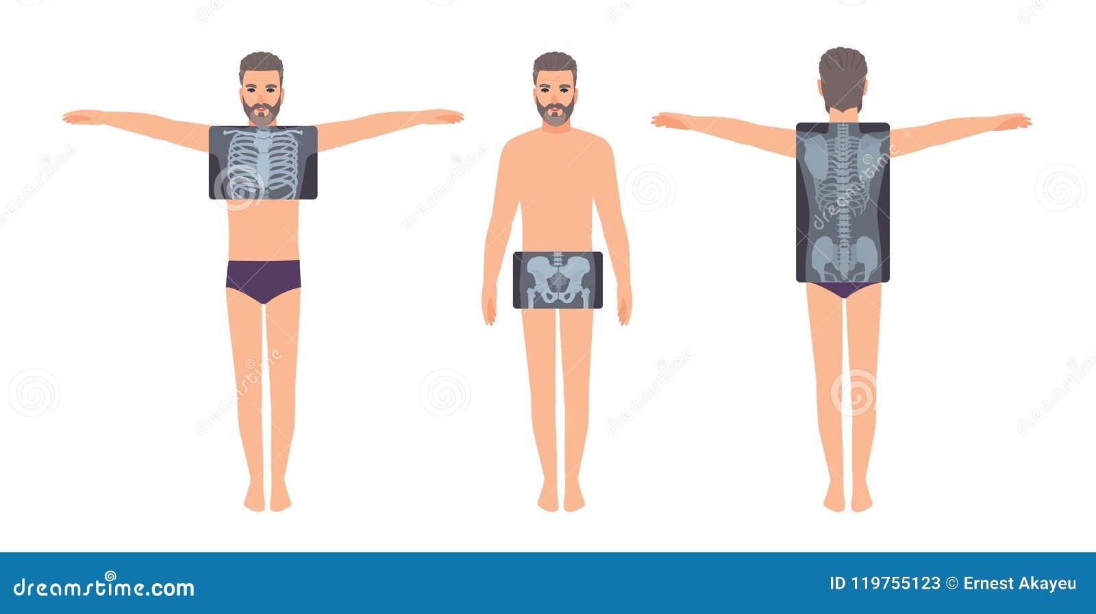 Manlig patient och hans bröstkorg, bäcken och tillbaka röntgenbild som isoleras på vit bakgrund Skäggig man och röntgenstrålebild