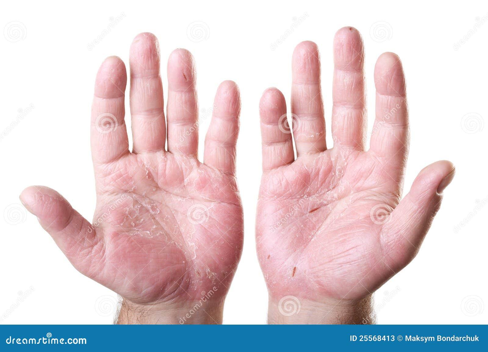 eksem hand