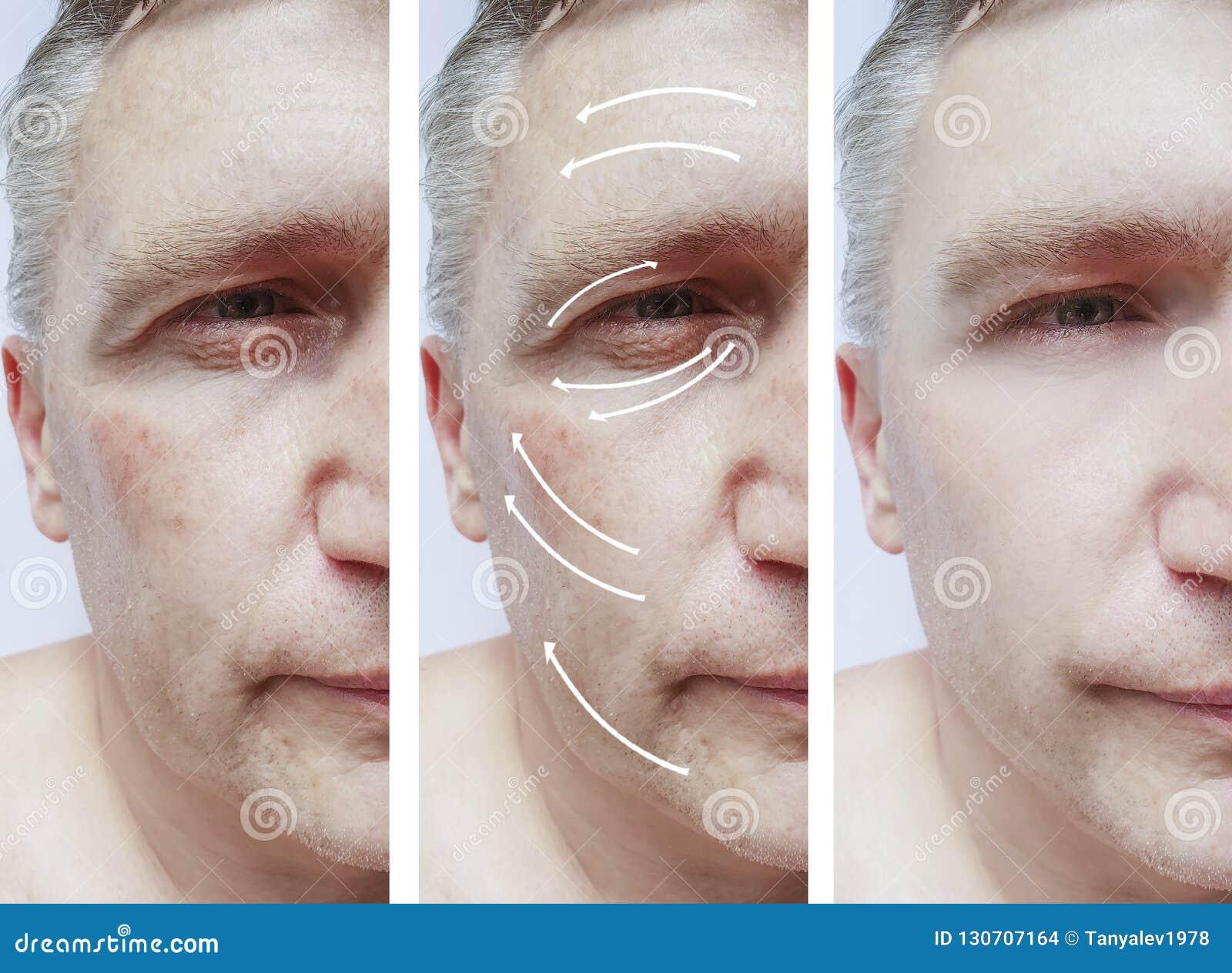 2215acc42599 Mann, Falten Auf Gesicht, Korrekturpatient Vor Und Nach Verfahren ...