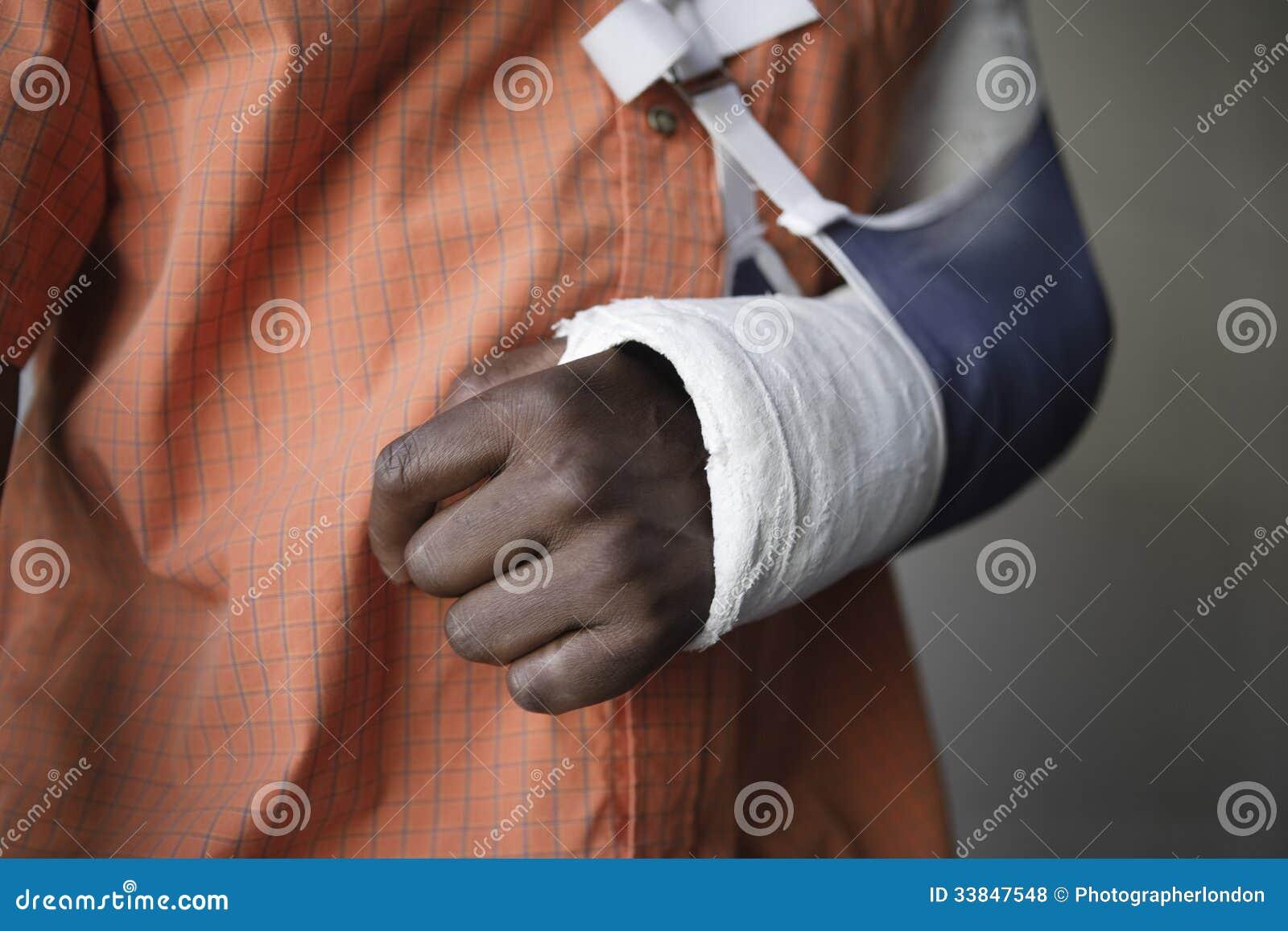 Mann mit dem gebrochenen Arm in der Form