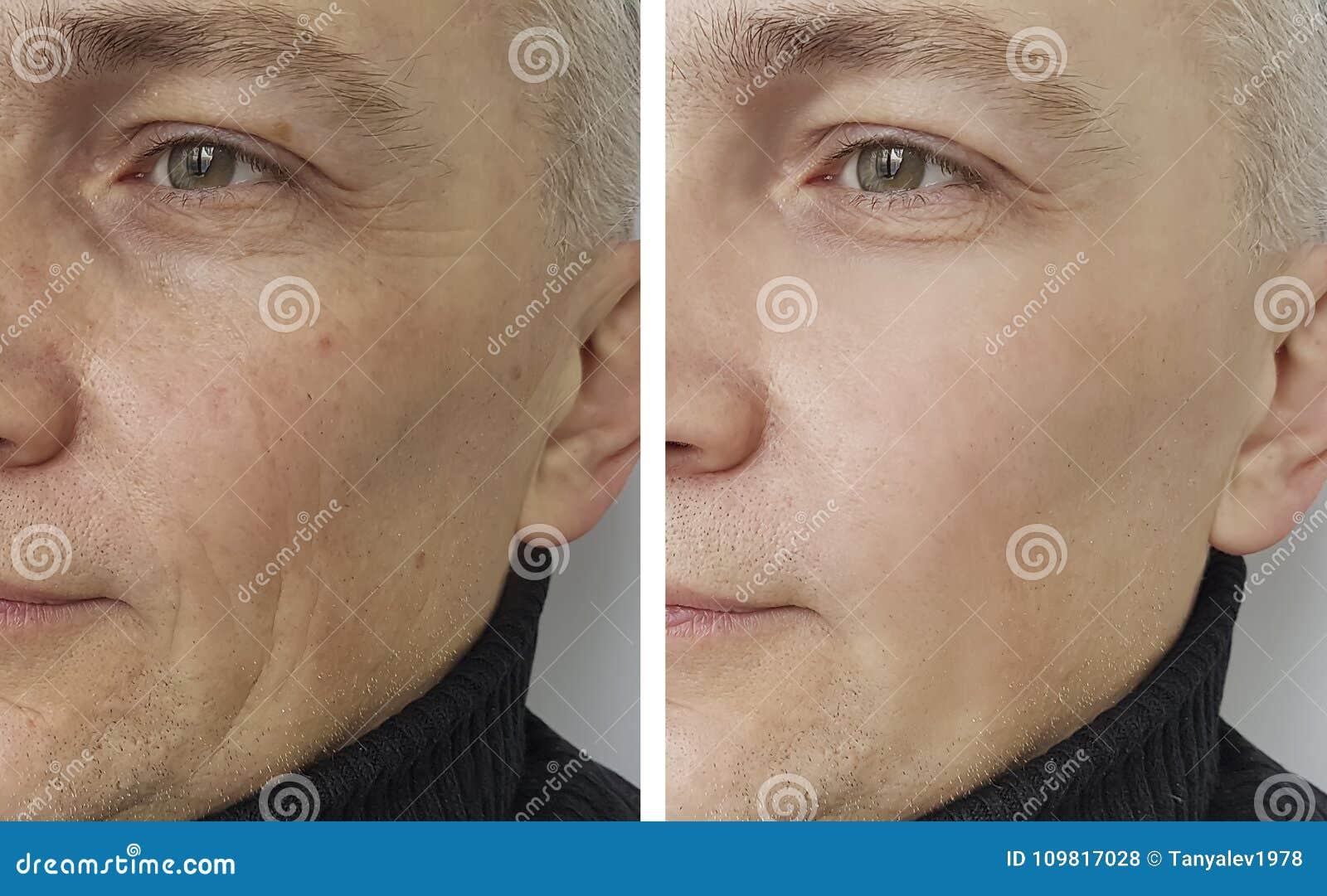 Mannen rynkar före och efter