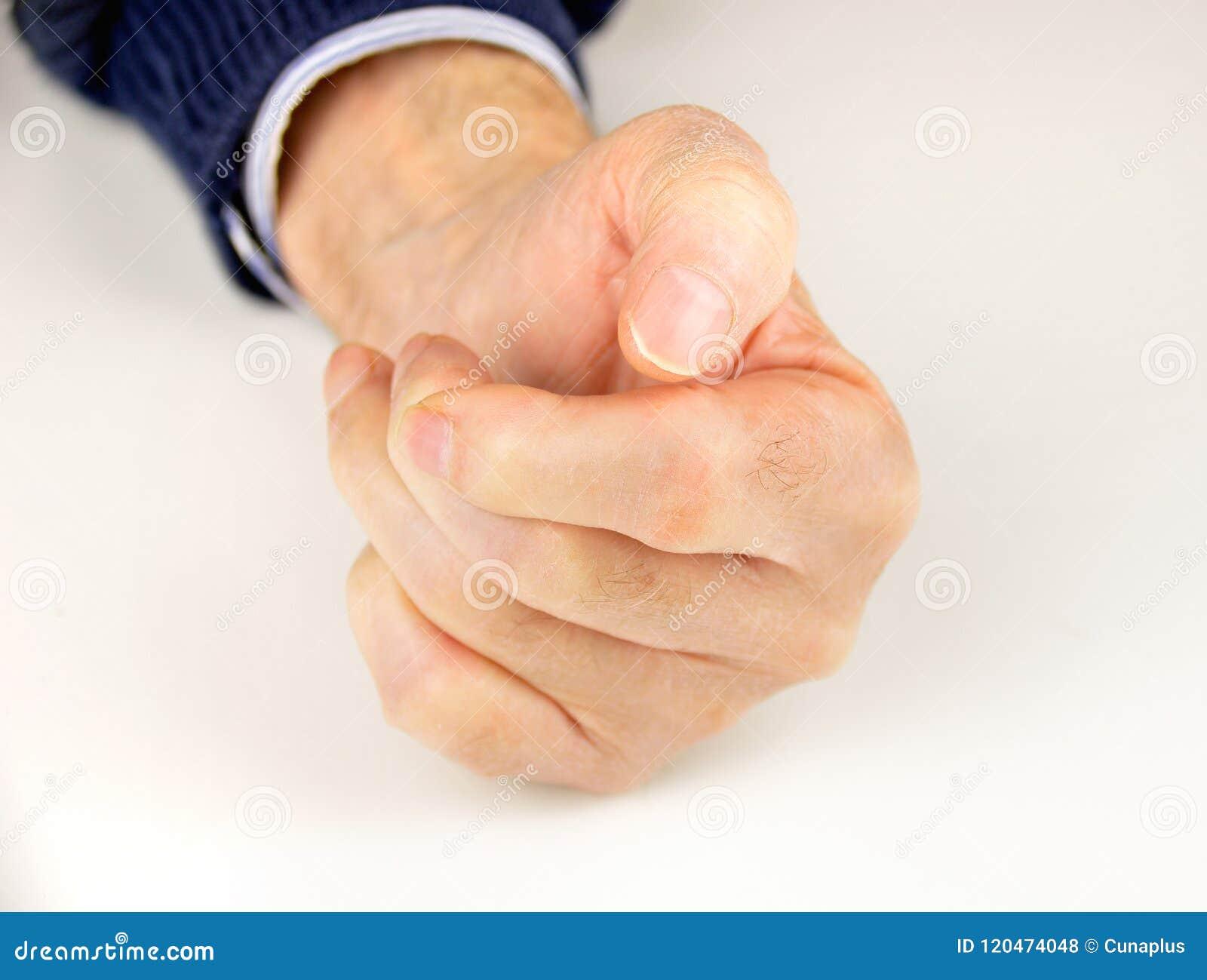 Mano Deformada De Artritis Reumatoide Foto De Archivo Imagen De
