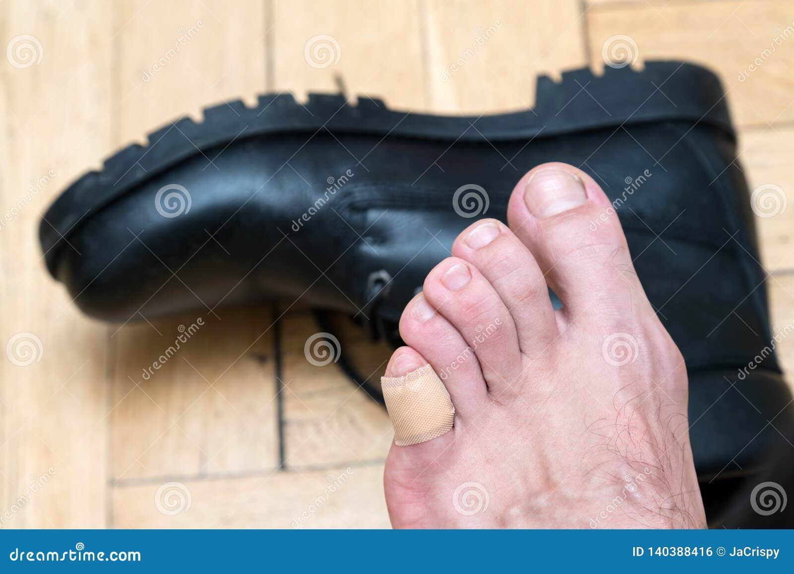 Mans hand applying plaster on terrible blister on human heel