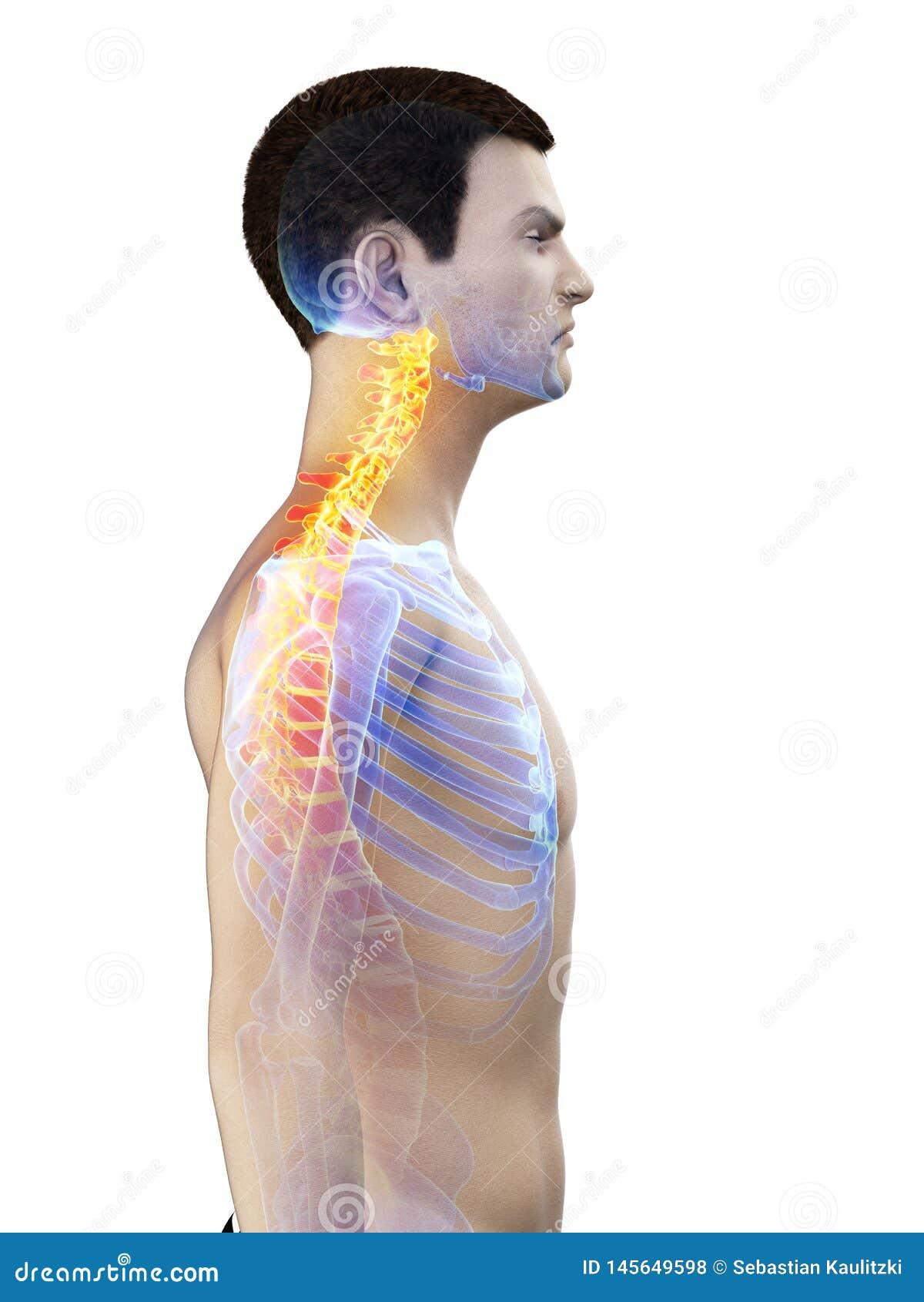 A mans painful neck