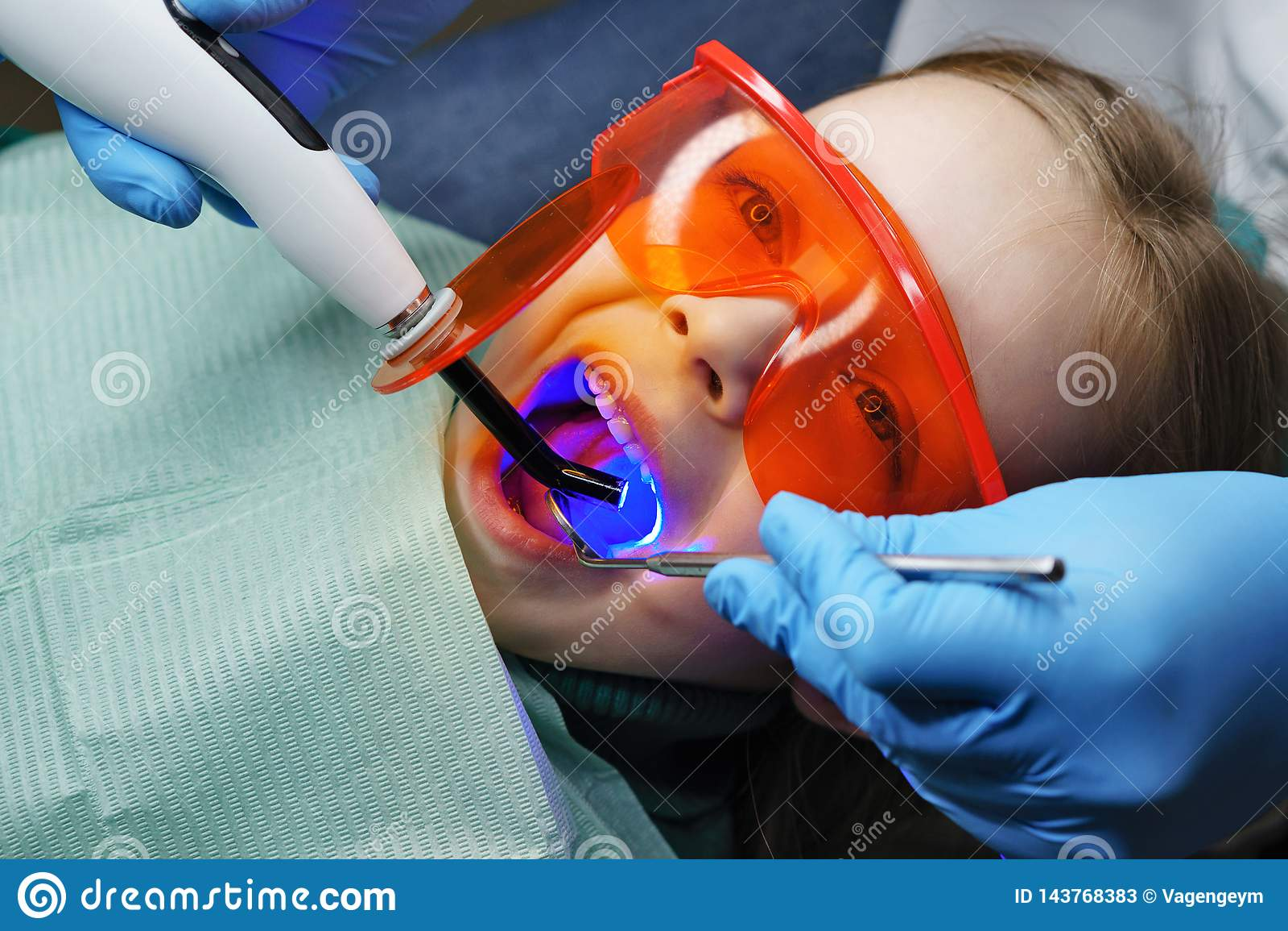 Materiale da otturazione dei denti di latte Clinica dentale