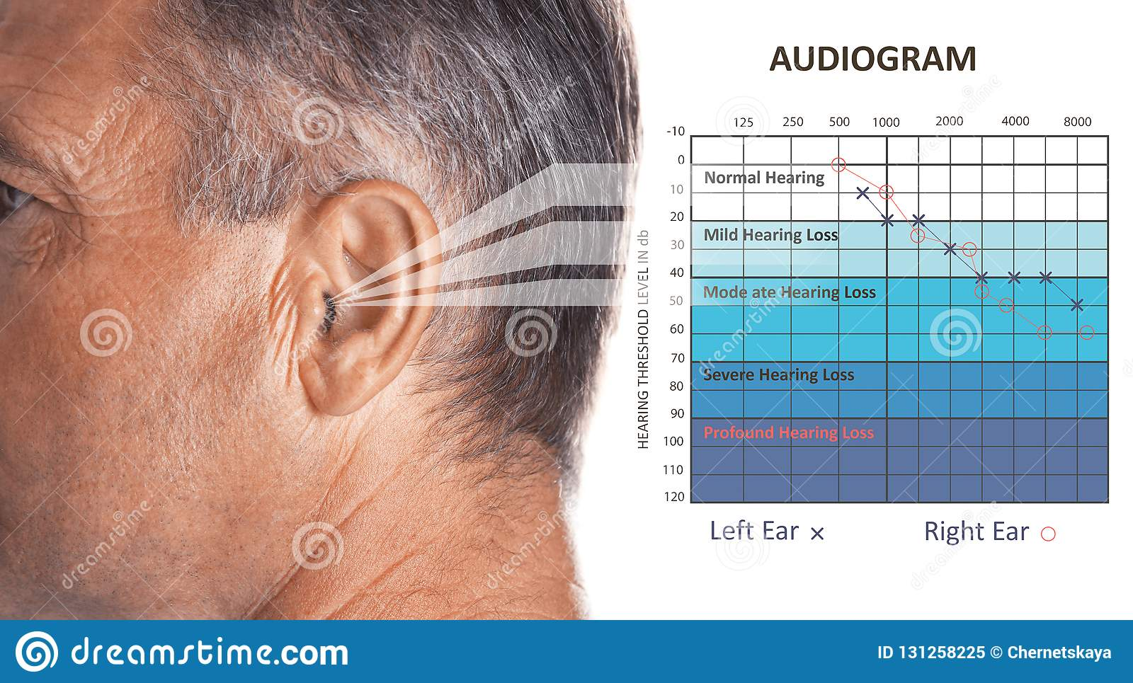 Mature Man With Symptom Of Hearing Loss Stock Image - Image