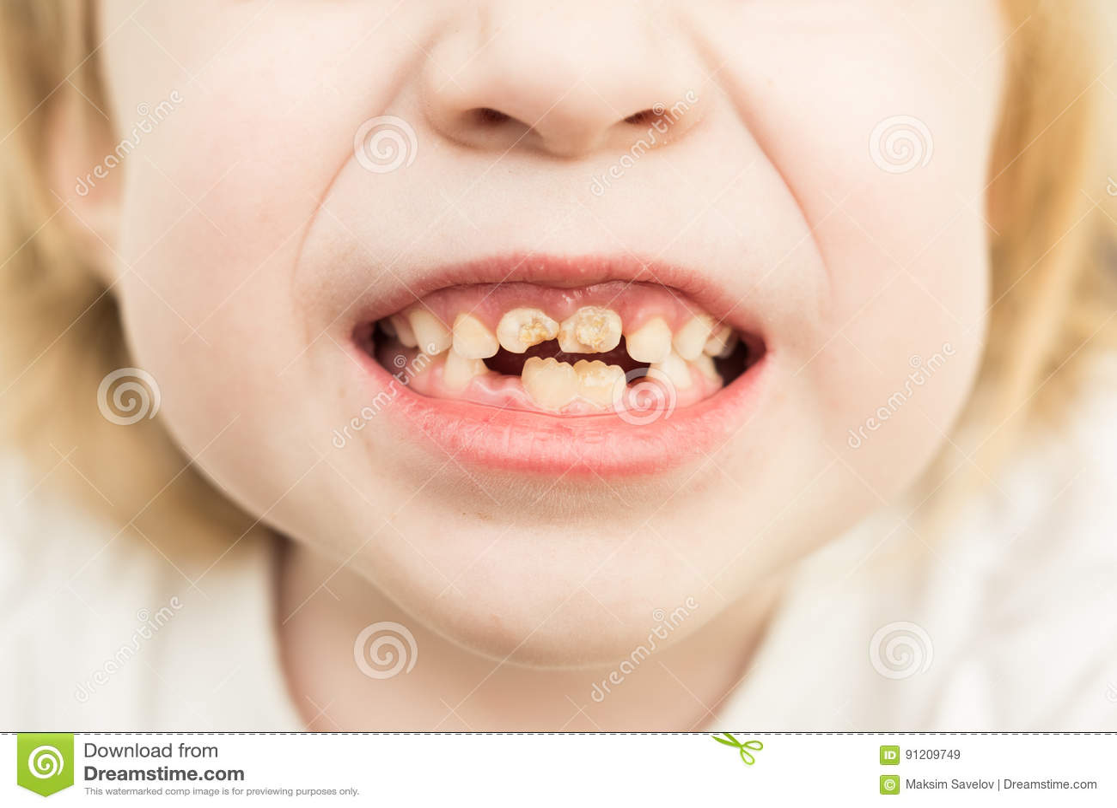 Mauvaises dents
