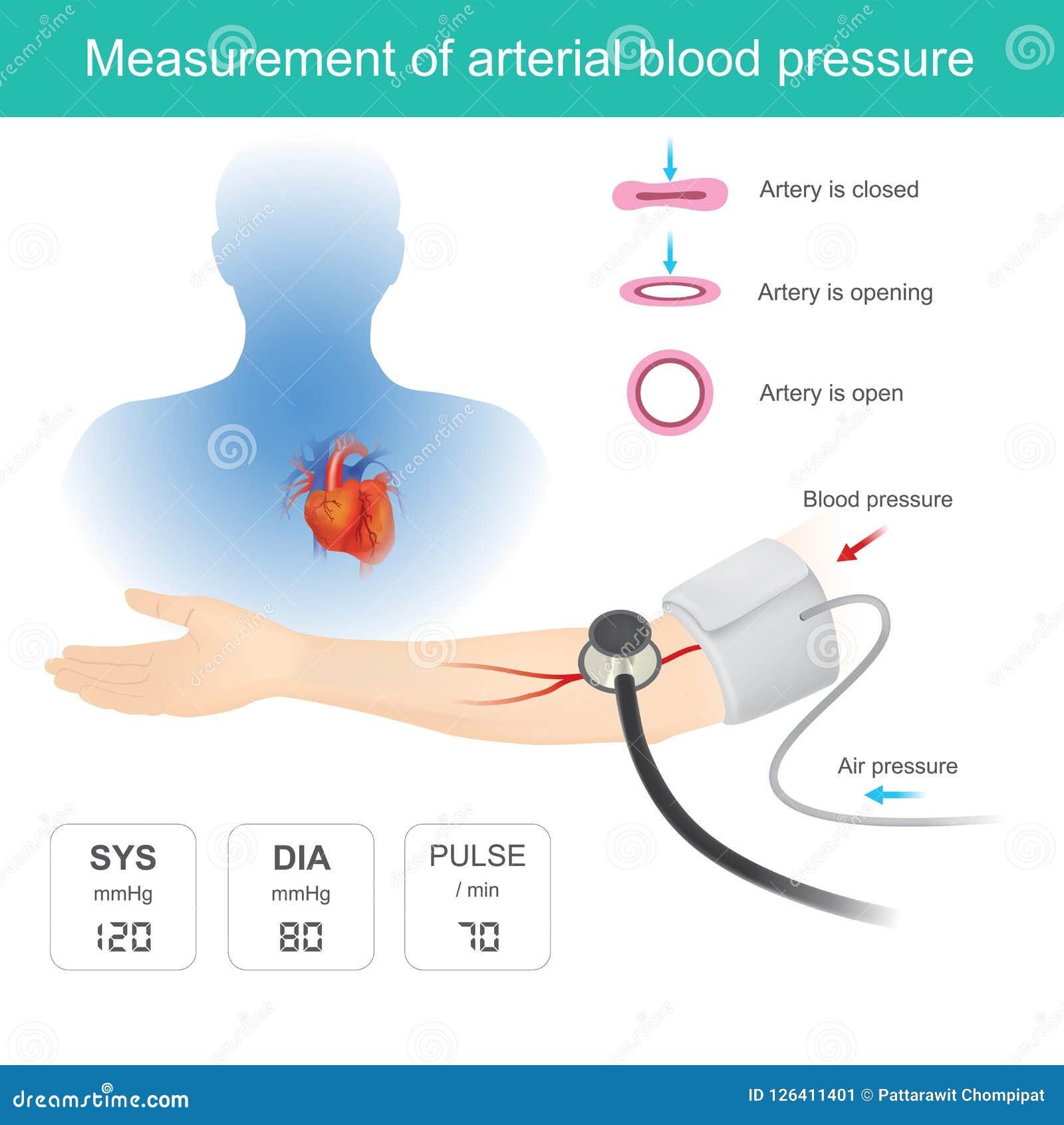 measurement of blood pressure magas vérnyomás és folyadék