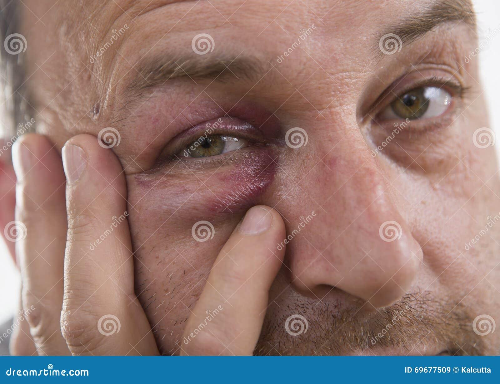 Medelålders Caucasian manlig emotionell stående med ett verkligt blåmärke