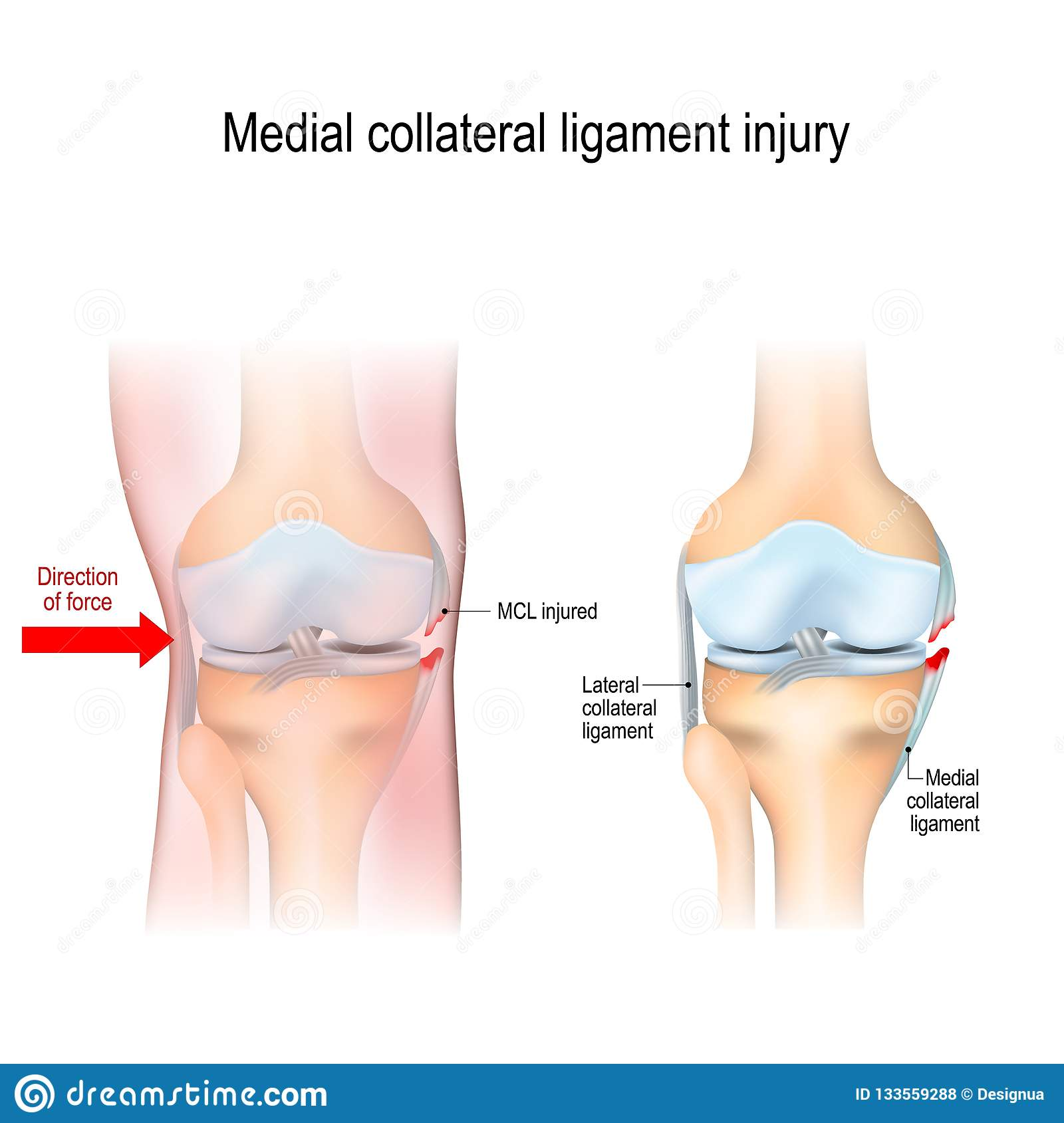 Medial Knee Injuries Stock Vector Illustration Of Replacement