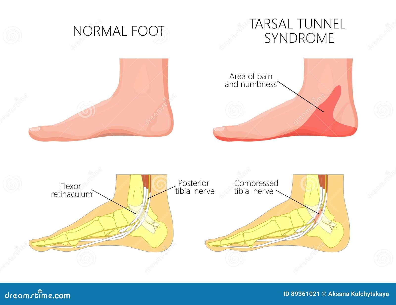 Medial kostki injury_Tarsal tunelowy syndrom