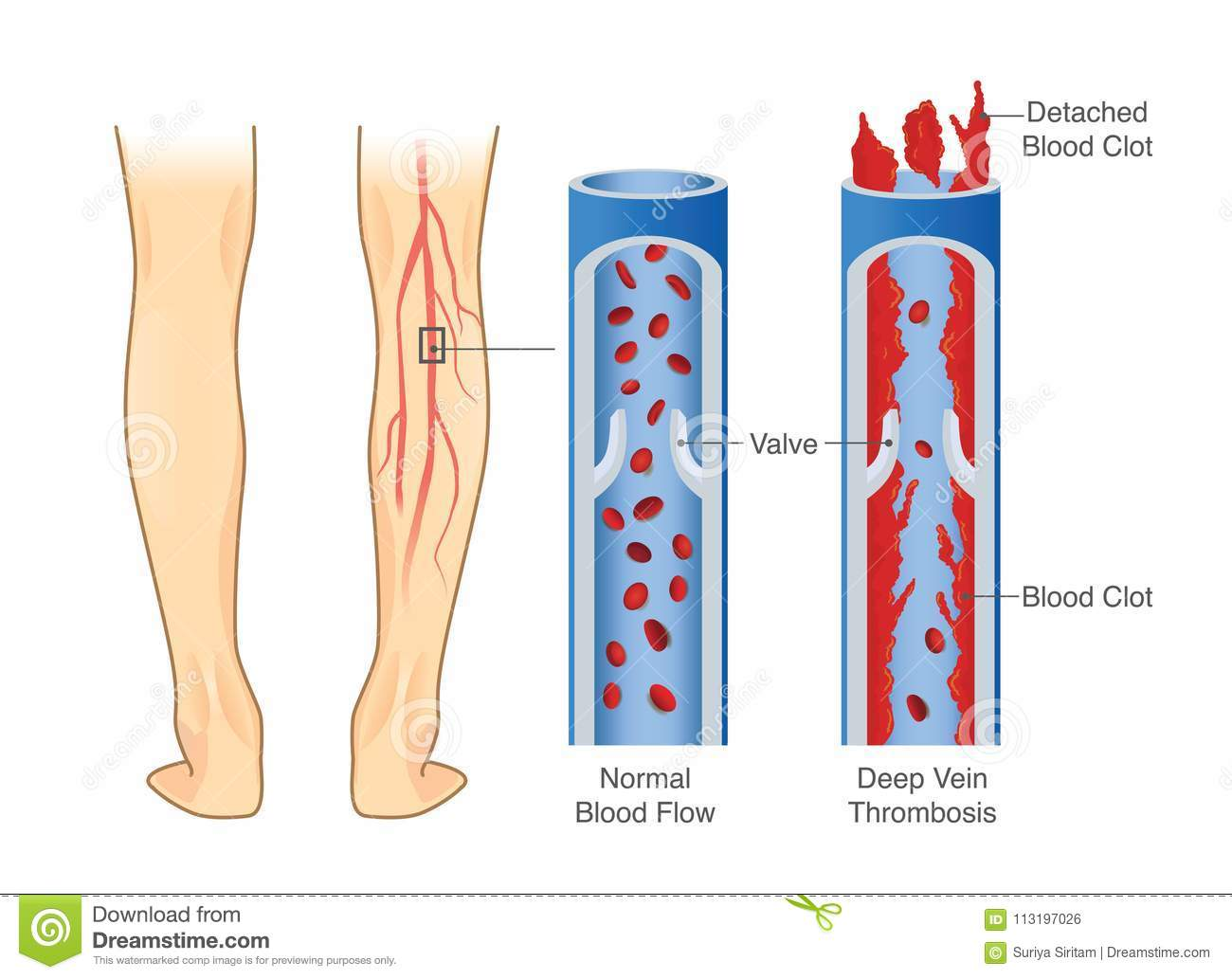 Deep Vein Thrombosis Rubber Stamp Stock Photography