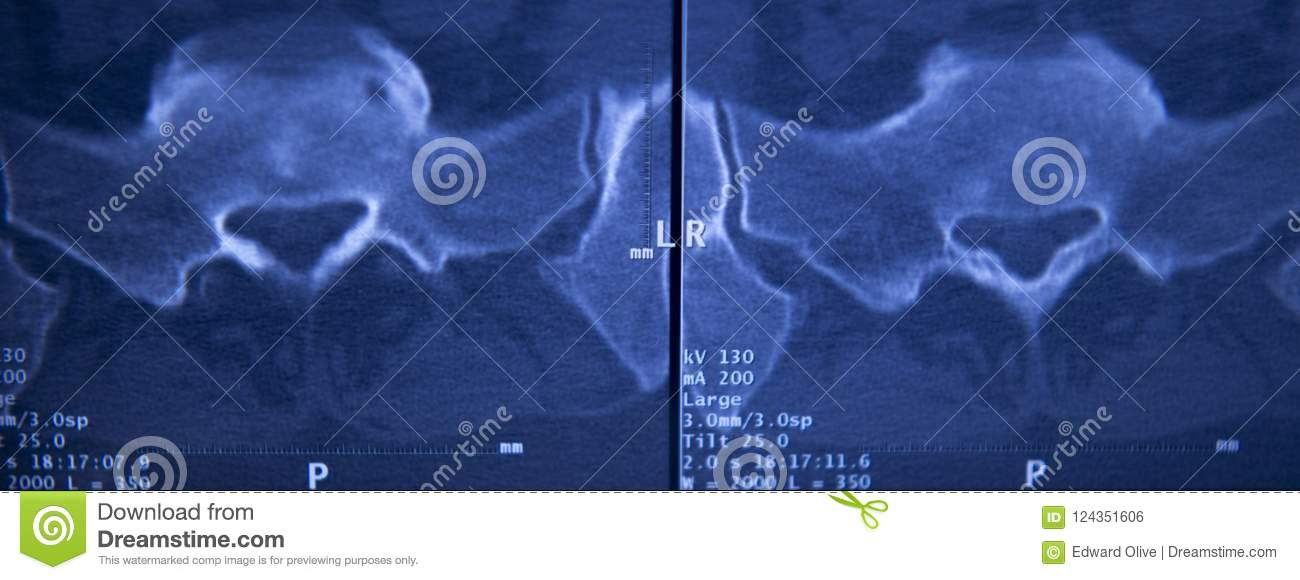 Medical Hips Spine Pelvis MRI Scan Stock Photo - Image of pelvis ...