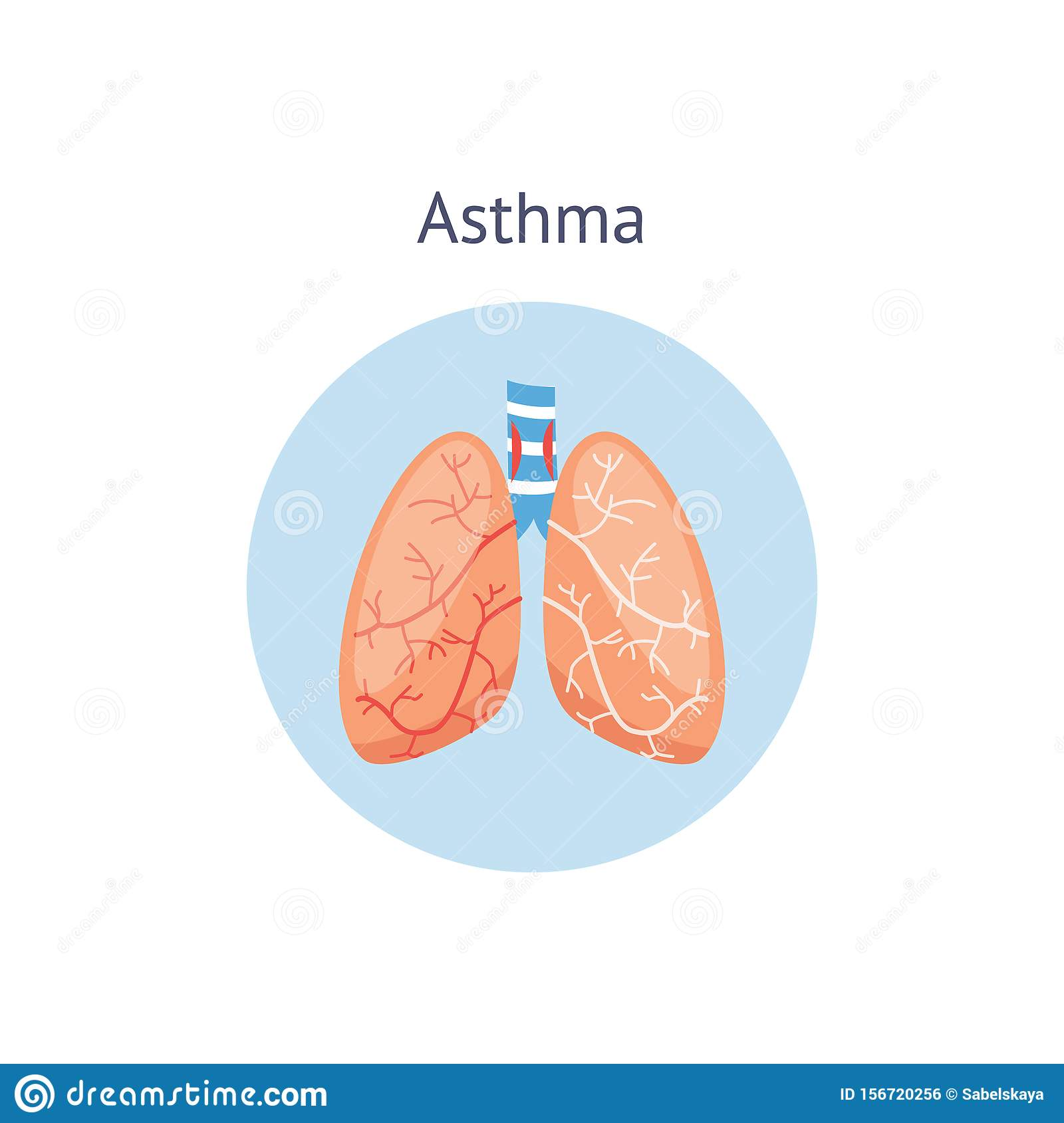 Medical: December 2010 |Human Lungs With Asthma