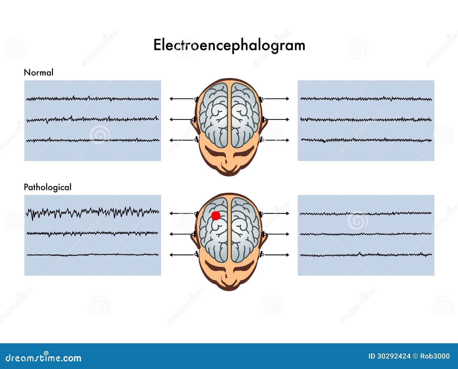 Electroencephalogram Stock Images Image 30292424
