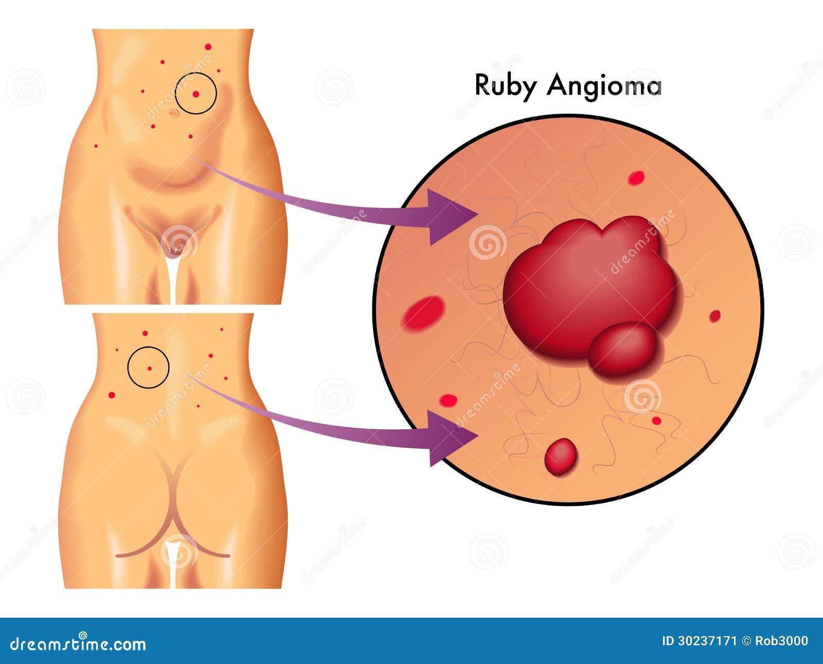 Ruby angioma