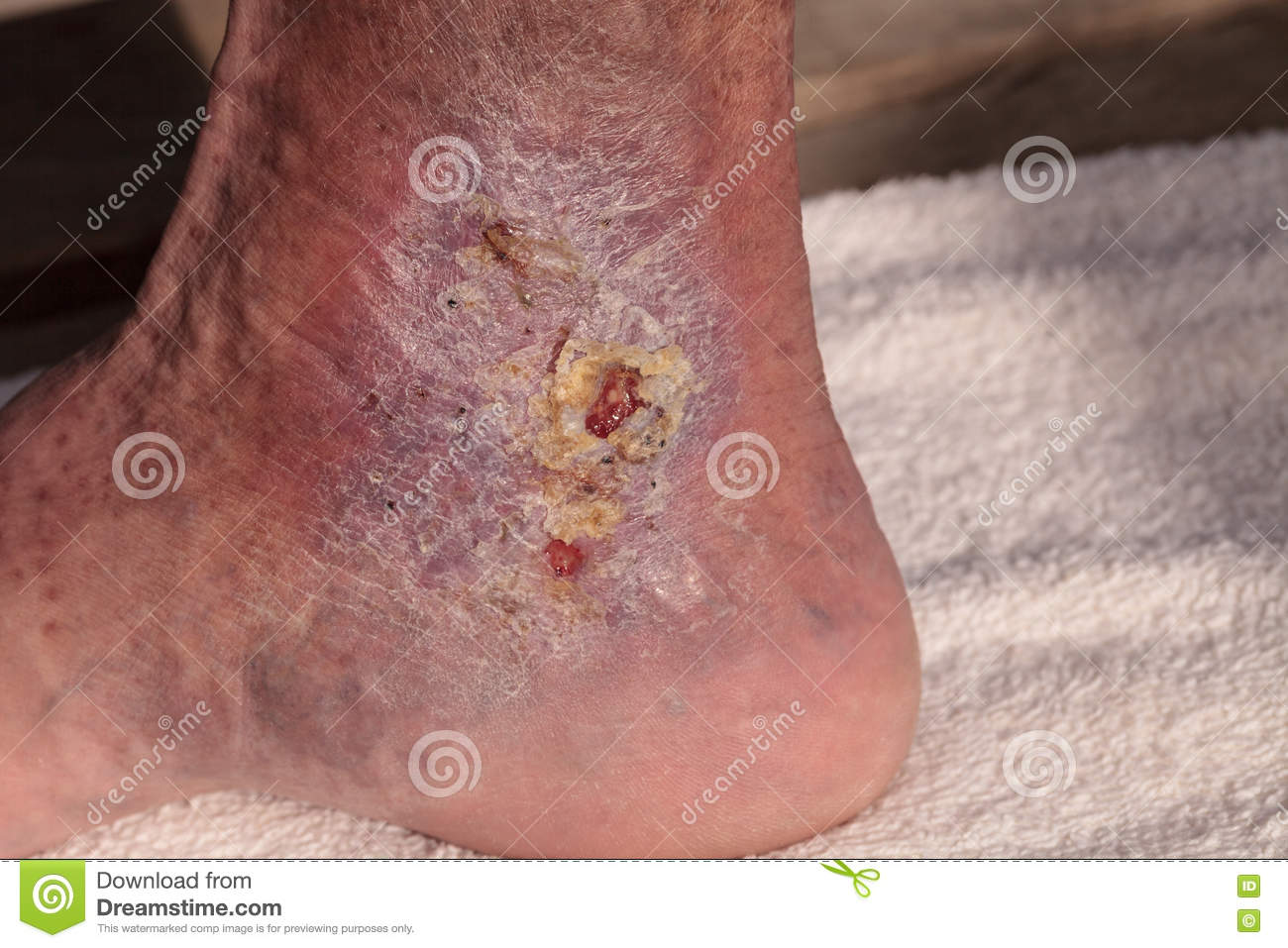 Medical picture: Infection cellulitis