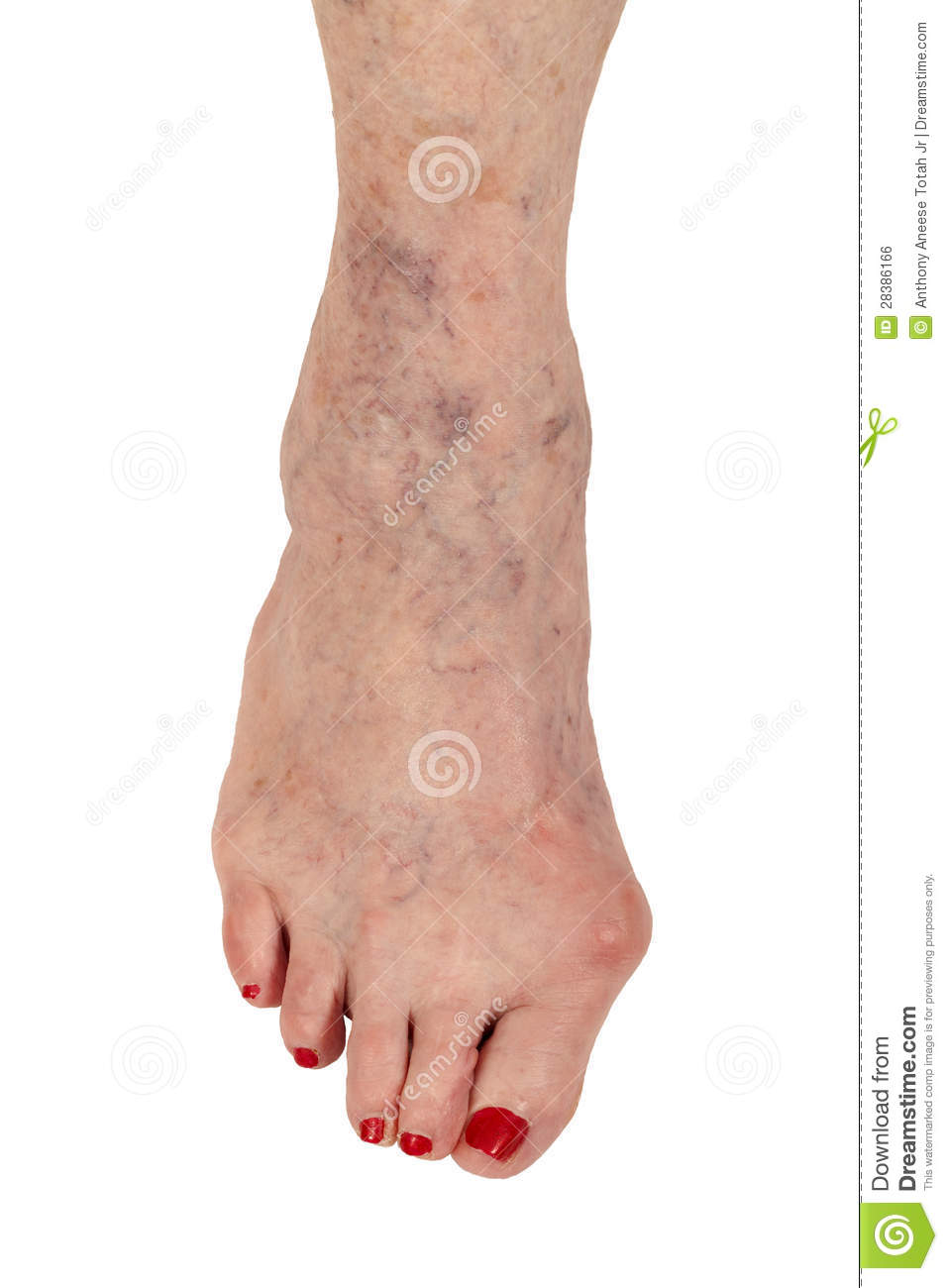 Medical: Rheumatoid Arthritis, Hammer Toe And Varicose ...